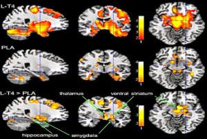 PET-Gehirnaufnahmen von Patienten, die mit L-T4 (oben) oder Placebo (Mitte) behandelt wurden. Je intensiver die Farbe desto größer die Deaktivierung des jeweiligen Gehirnareal. Untere Reihe zeigt Areale an, wo Unterschiede am größten waren.