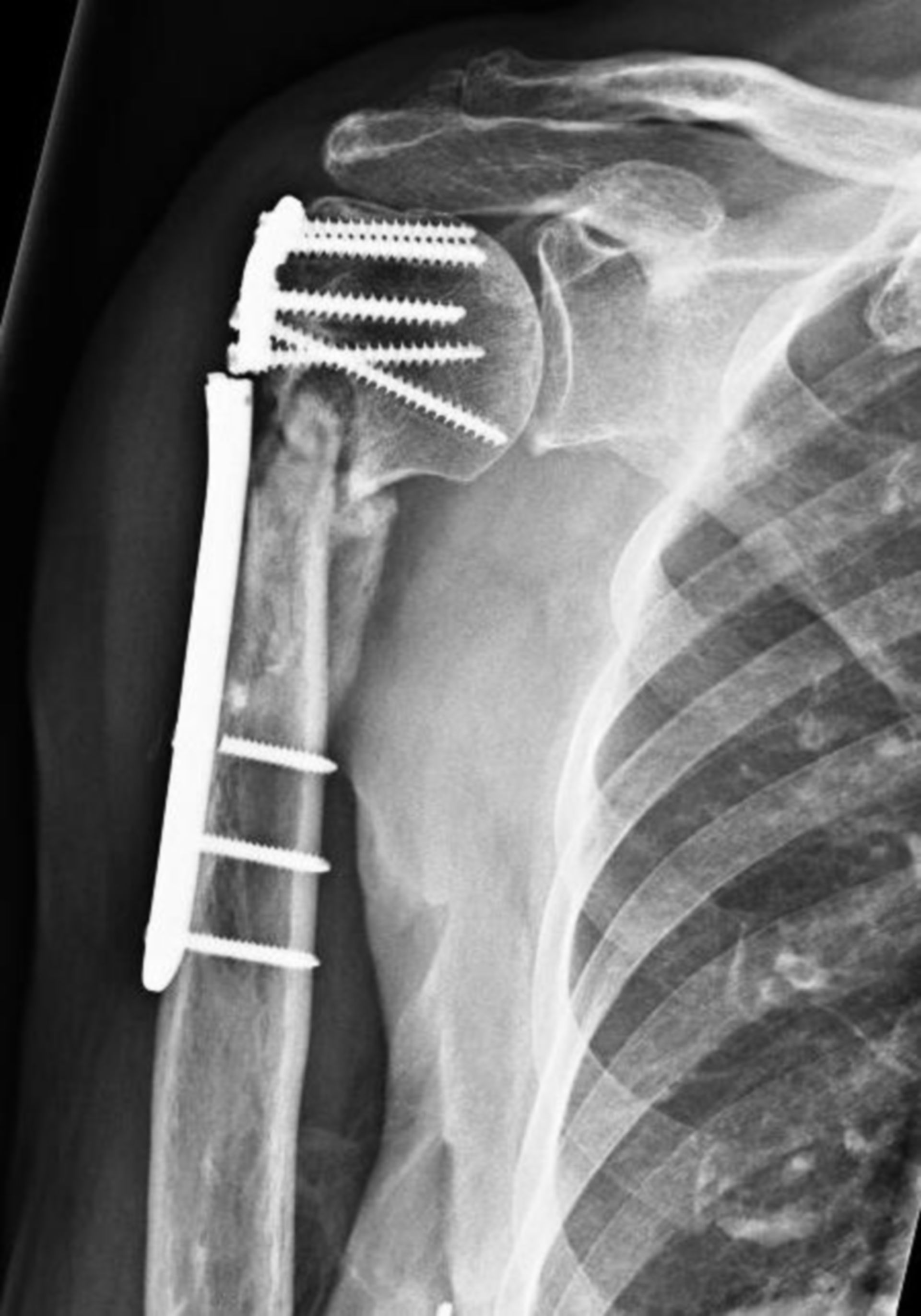 Upper arm fracture - plate fracture