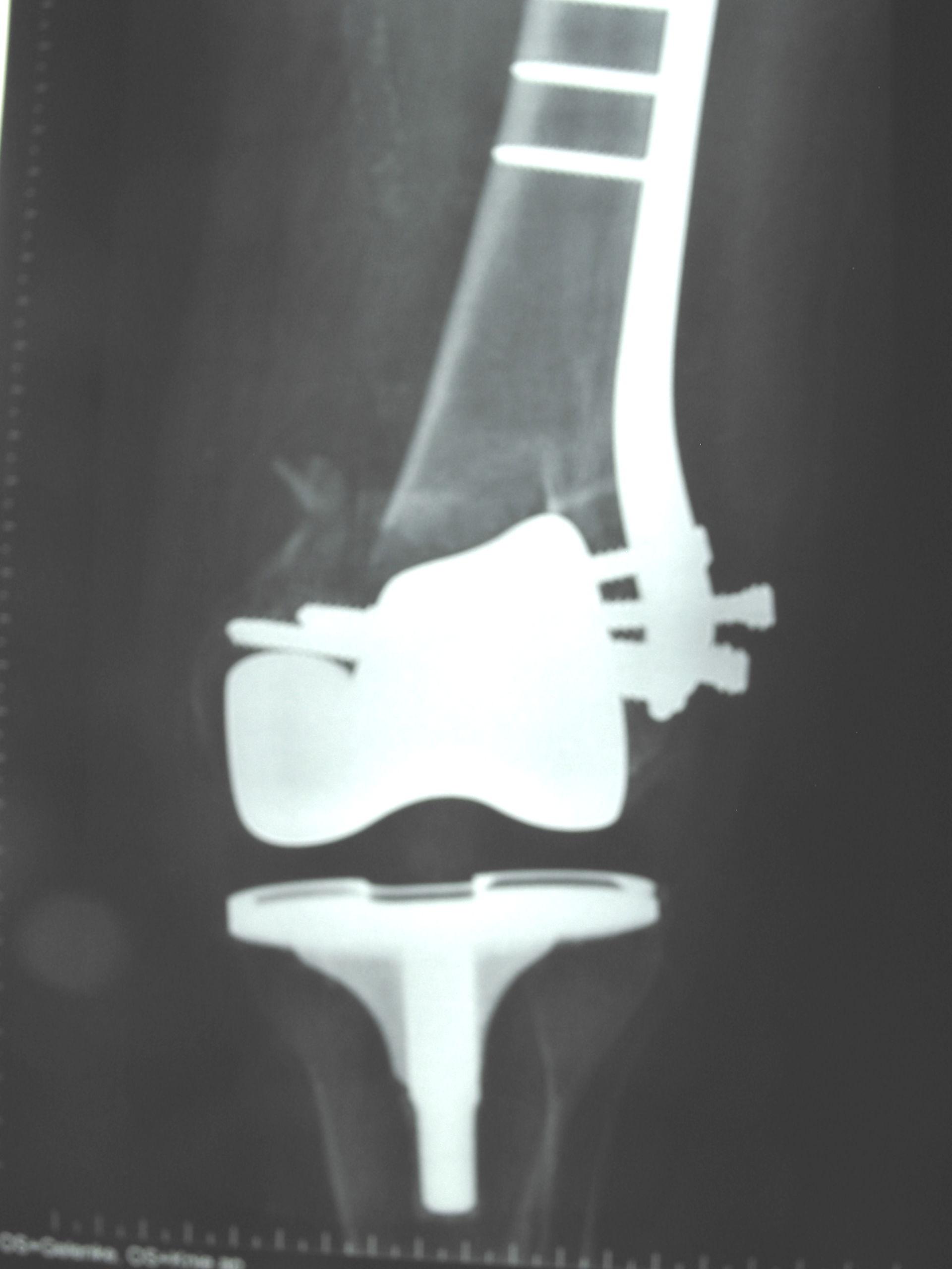 Protesi nelle fratture secondarie