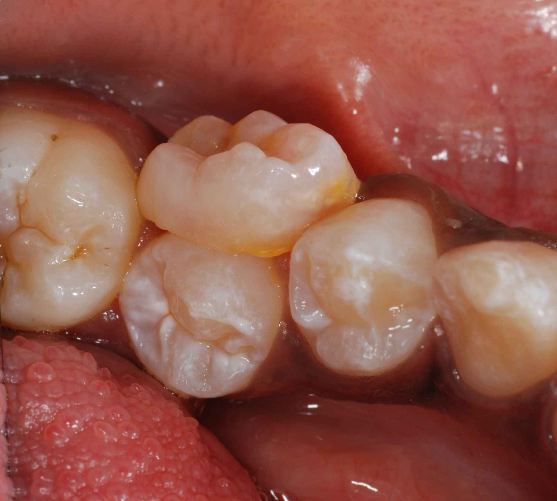 Persistent milk tooth 75