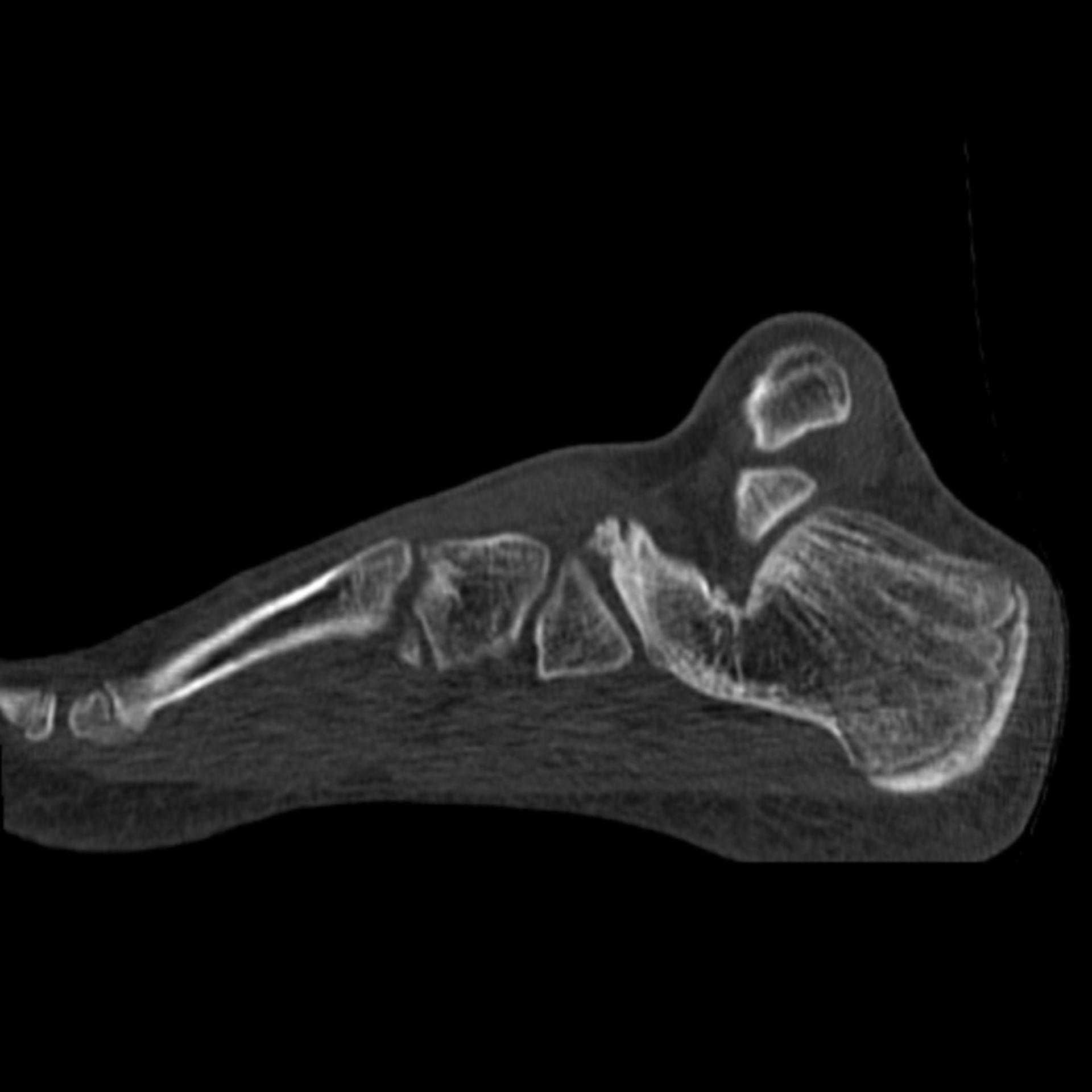CT_sag2: CT des Fußes in sagittaler Ebene