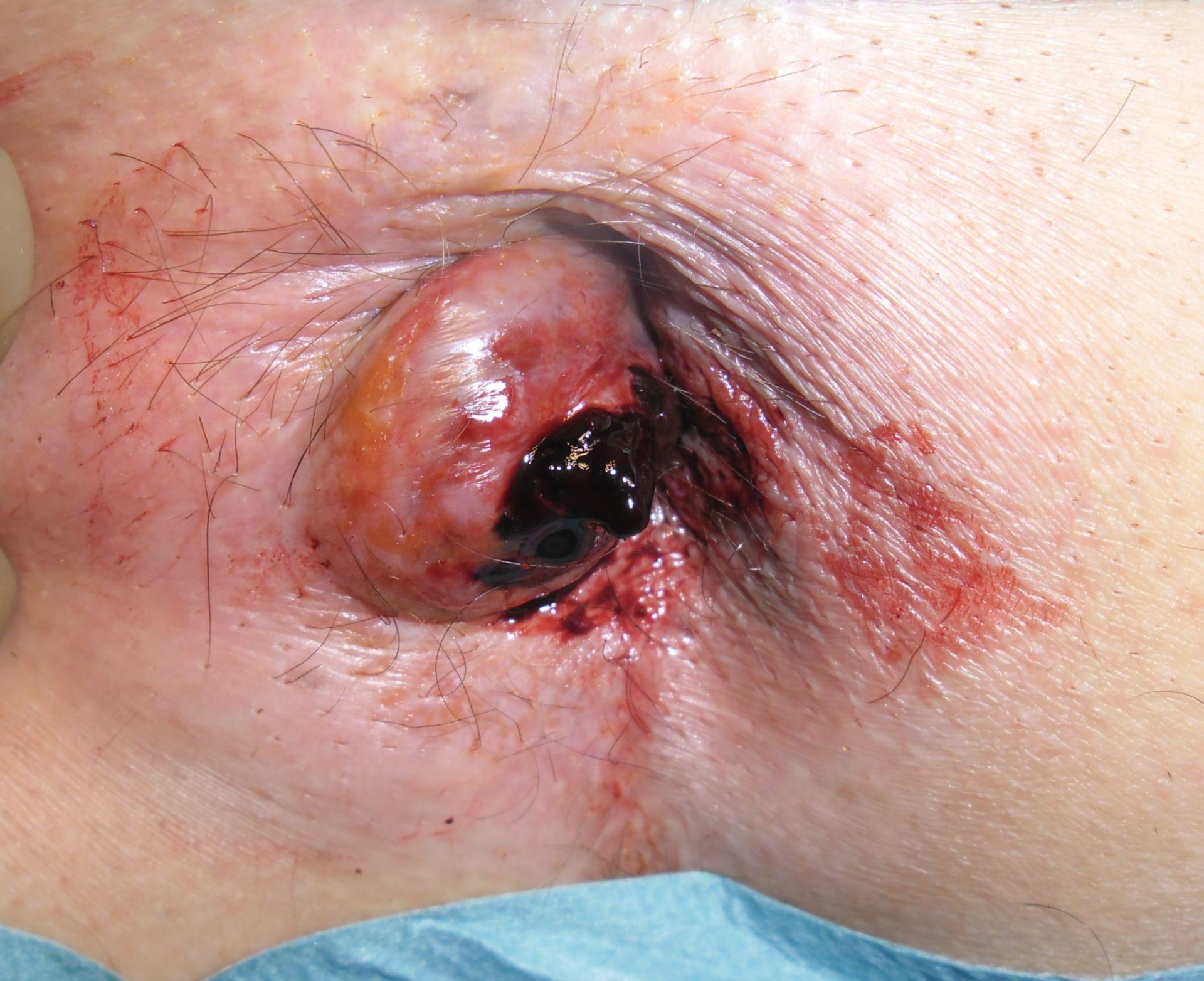 Hemorroide trombosada