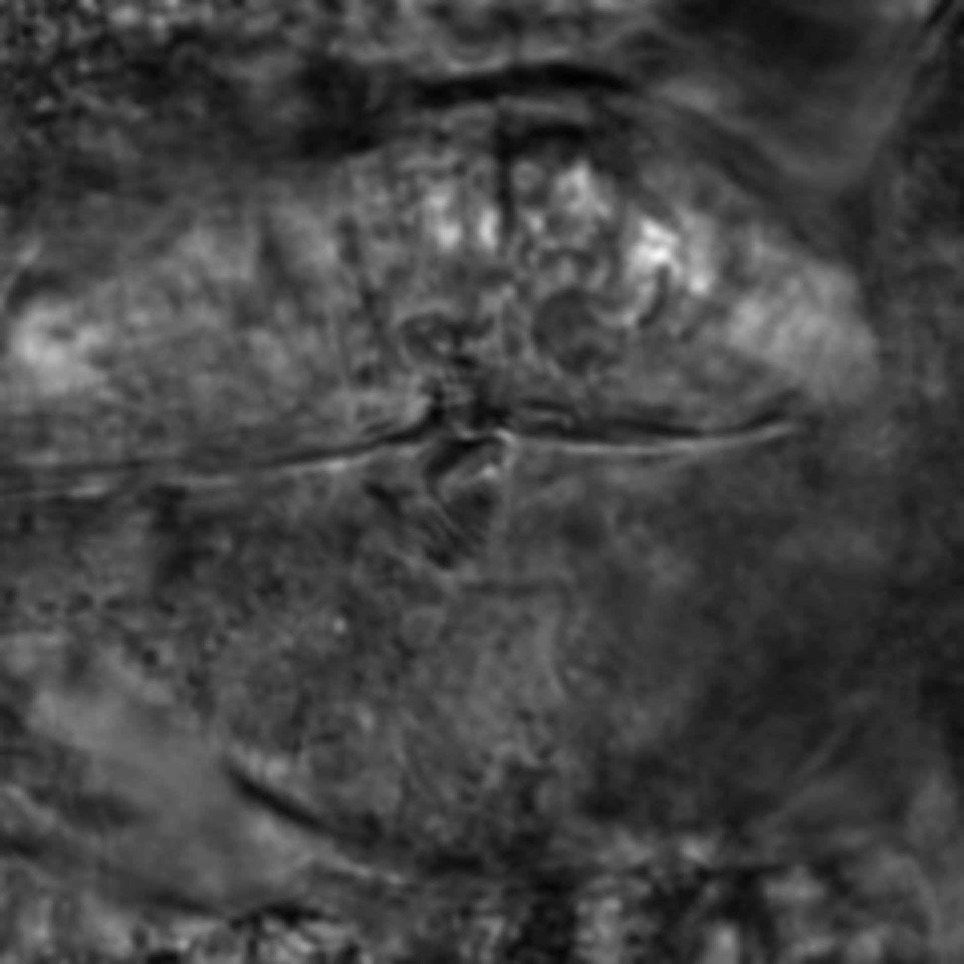 Caenorhabditis elegans - CIL:2672