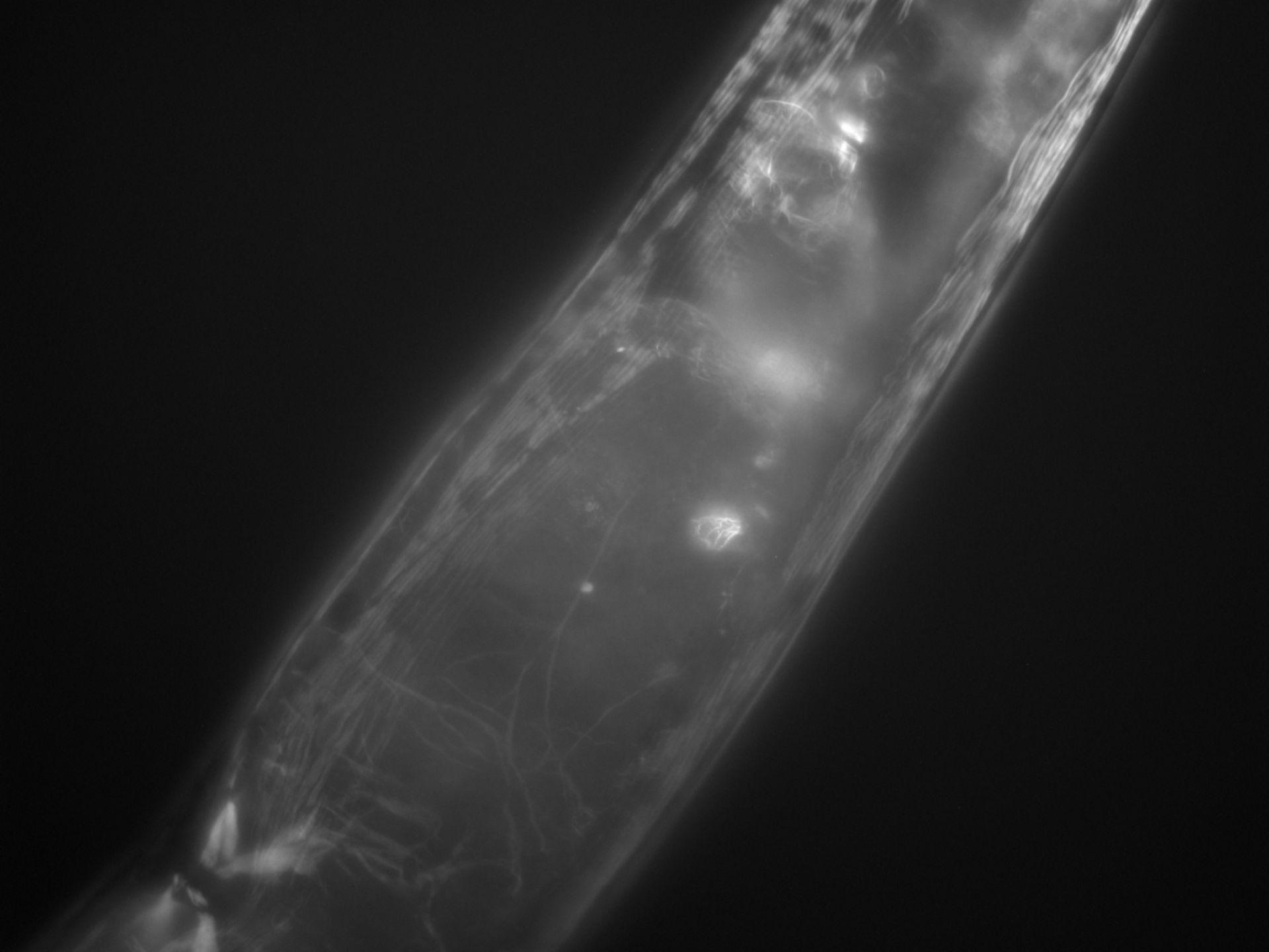 Caenorhabditis elegans (Actin filament) - CIL:1277