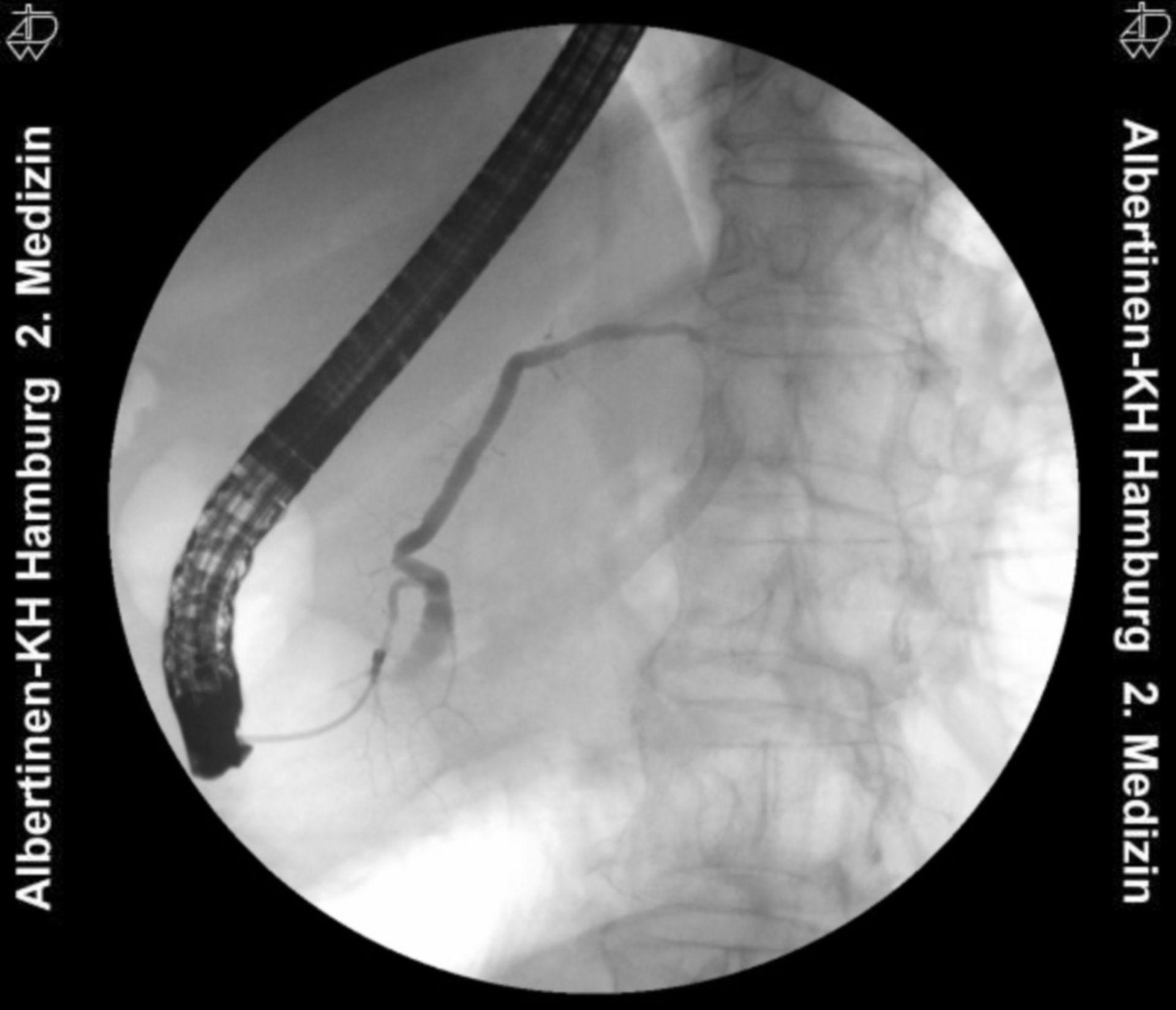 Quelle: Endoskopie-Atlas