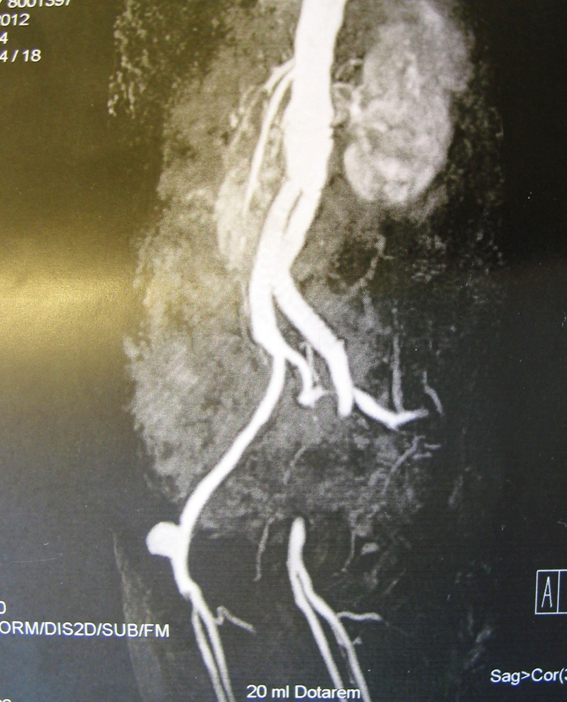 Aneurisma de la A. femoral común