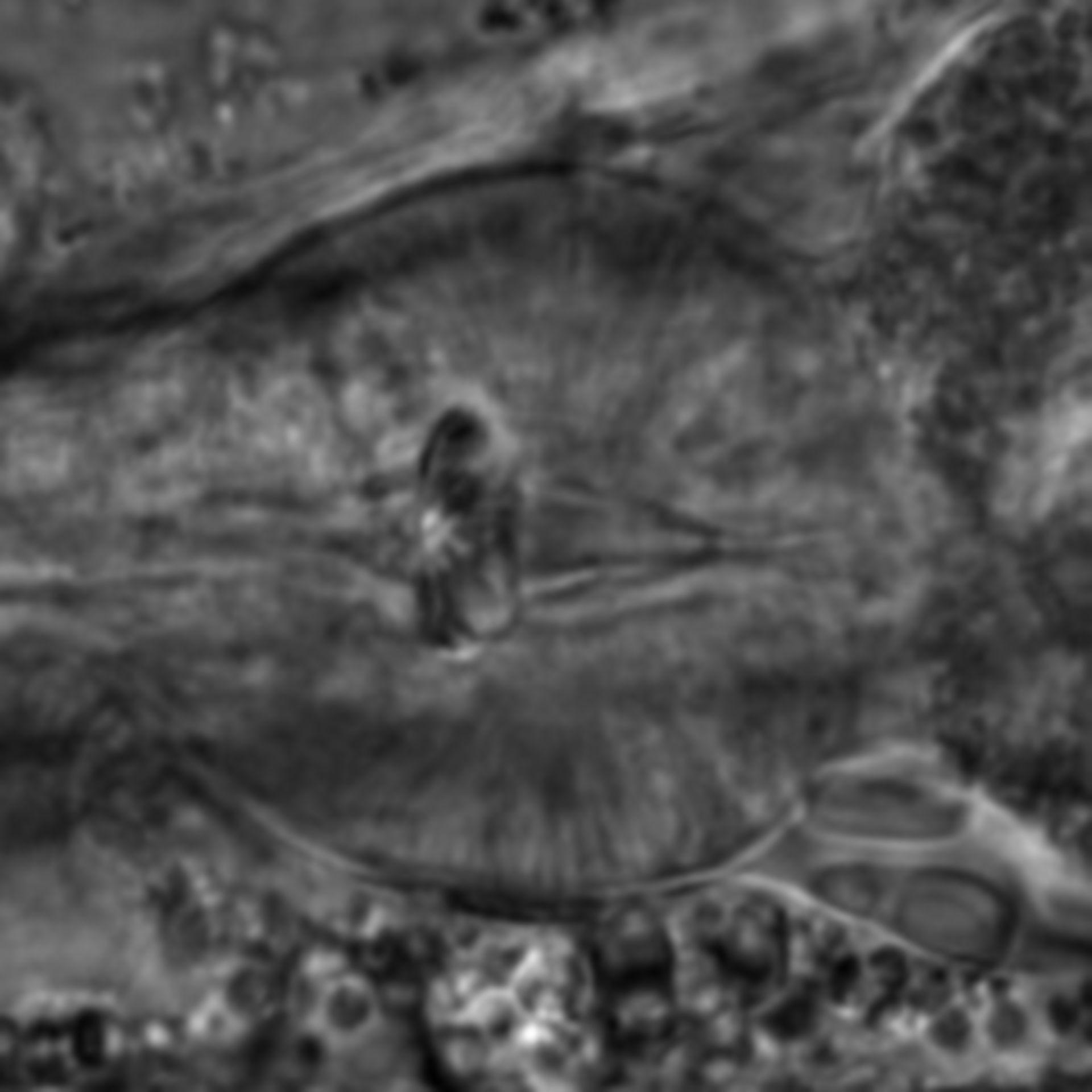 Caenorhabditis elegans - CIL:1736