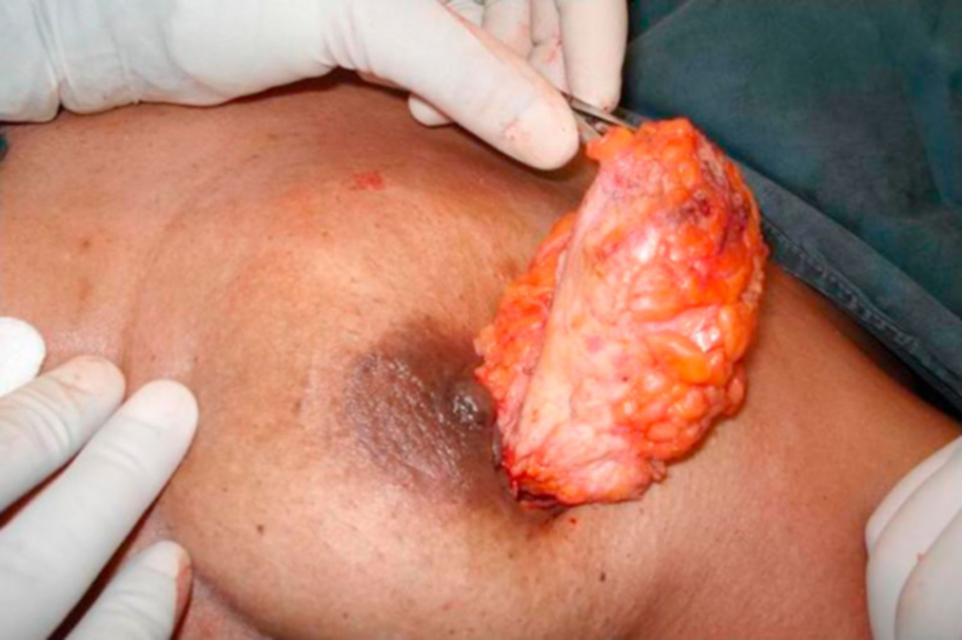 Excision of the upper inner quadrant lesion by a circum-areolar incision