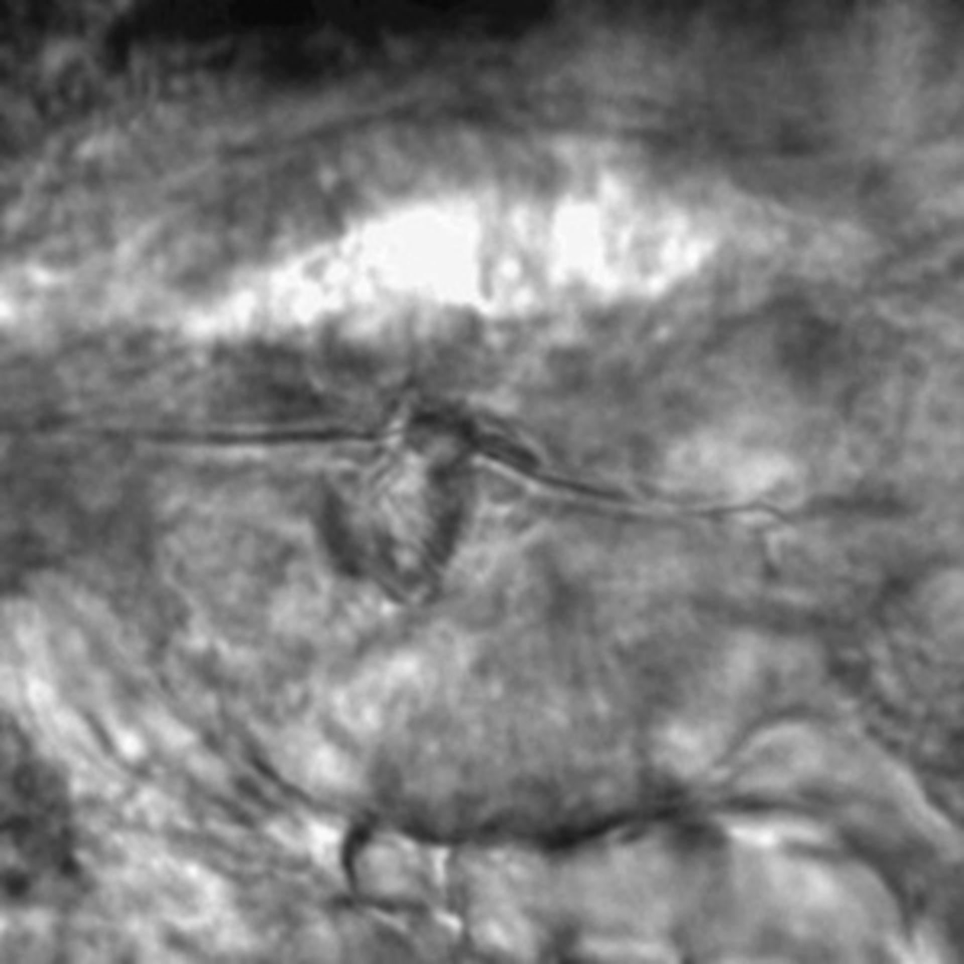 Caenorhabditis elegans - CIL:2276