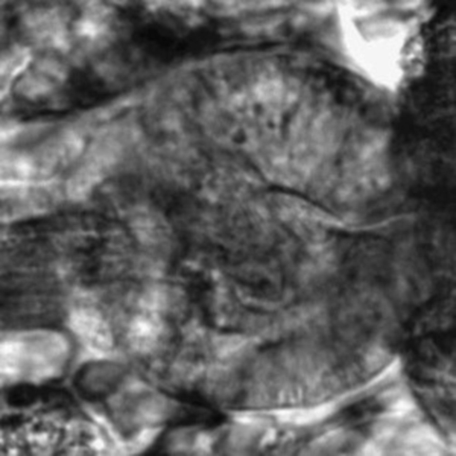 Caenorhabditis elegans - CIL:2577