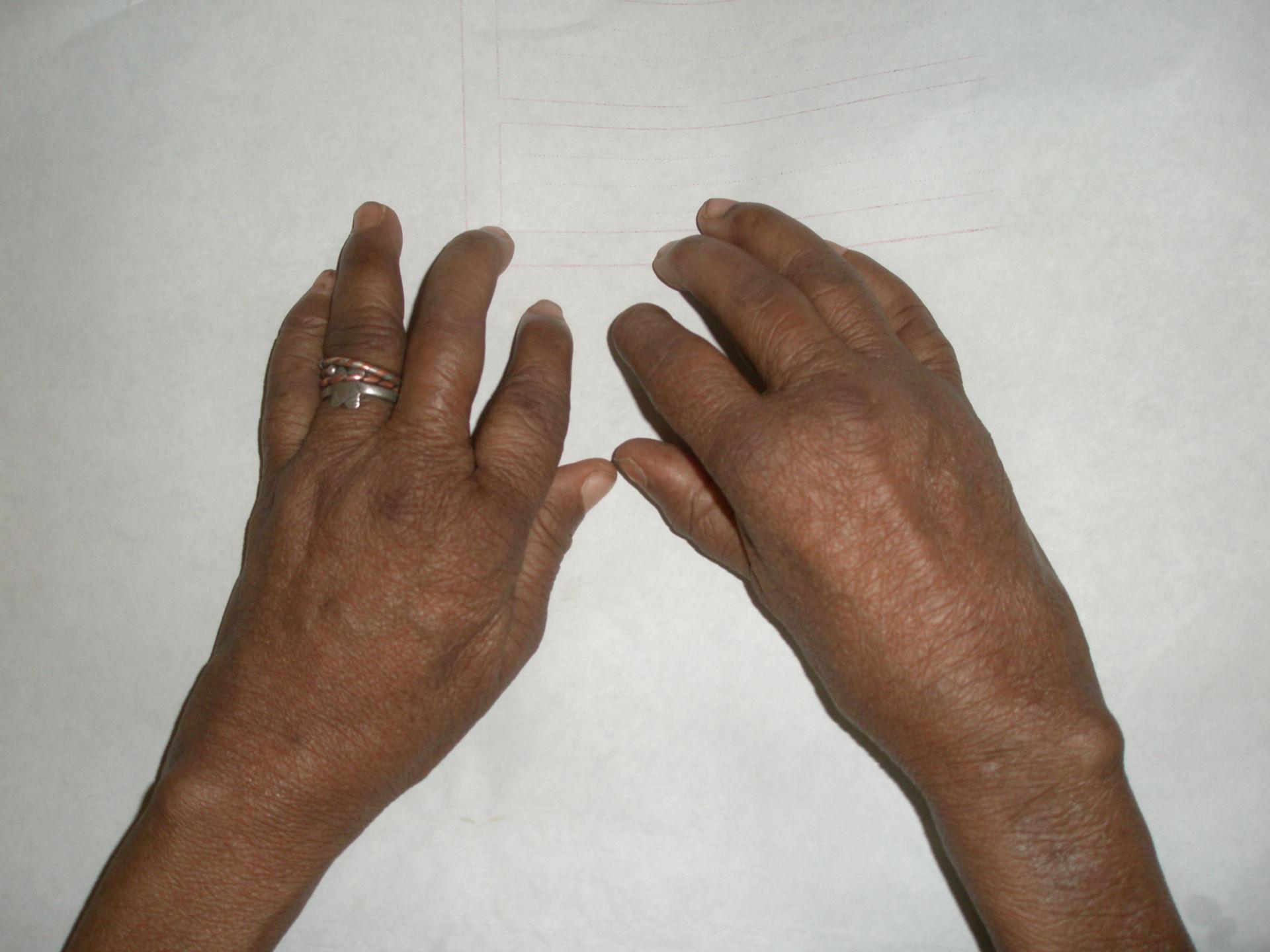 Artritis reumatoide, deformación de las manos