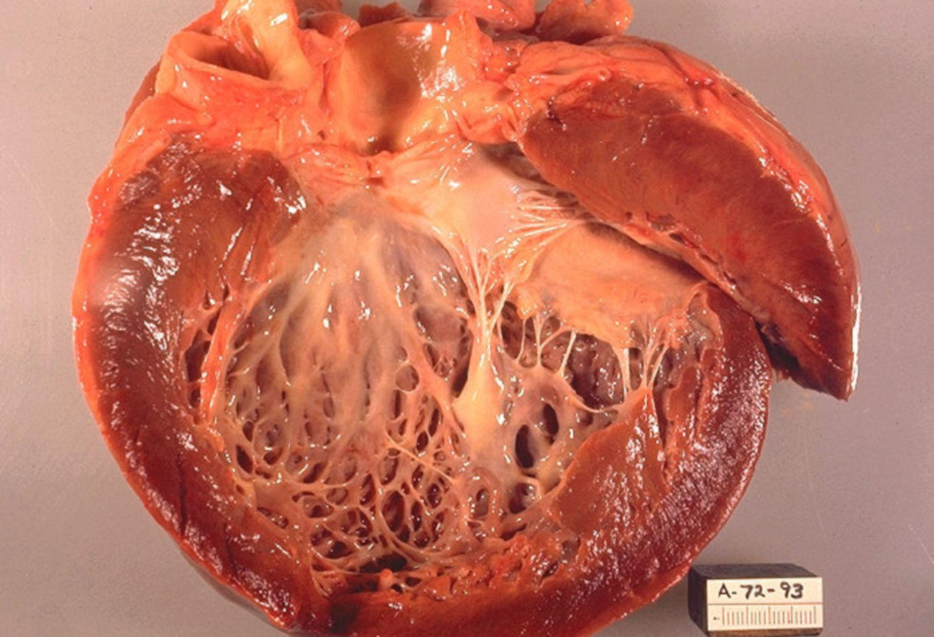 Cardiomiopatia idiopatica