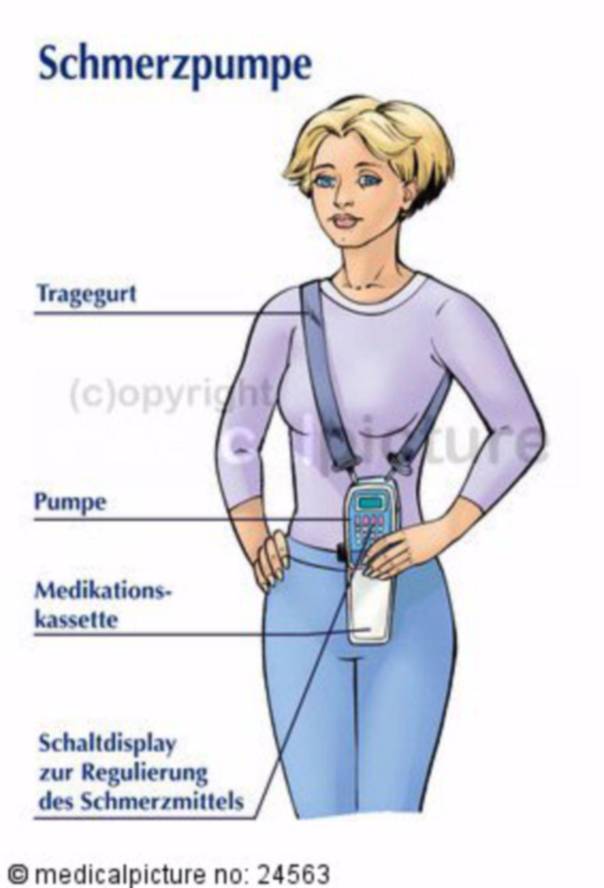 Portable Pain Pump for Chronic Pain Patient