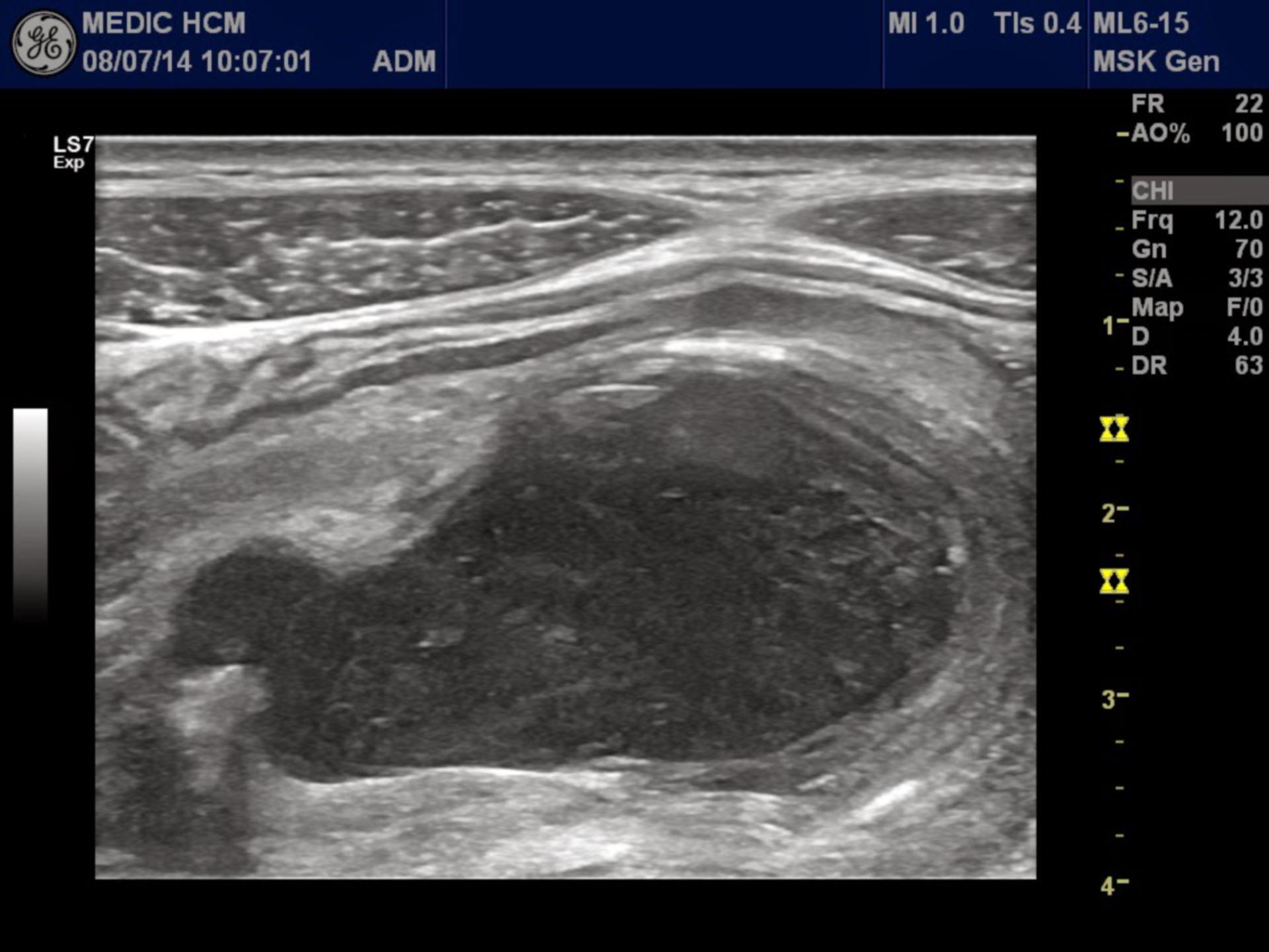 Mucocele del apéndice vermiforme (1)