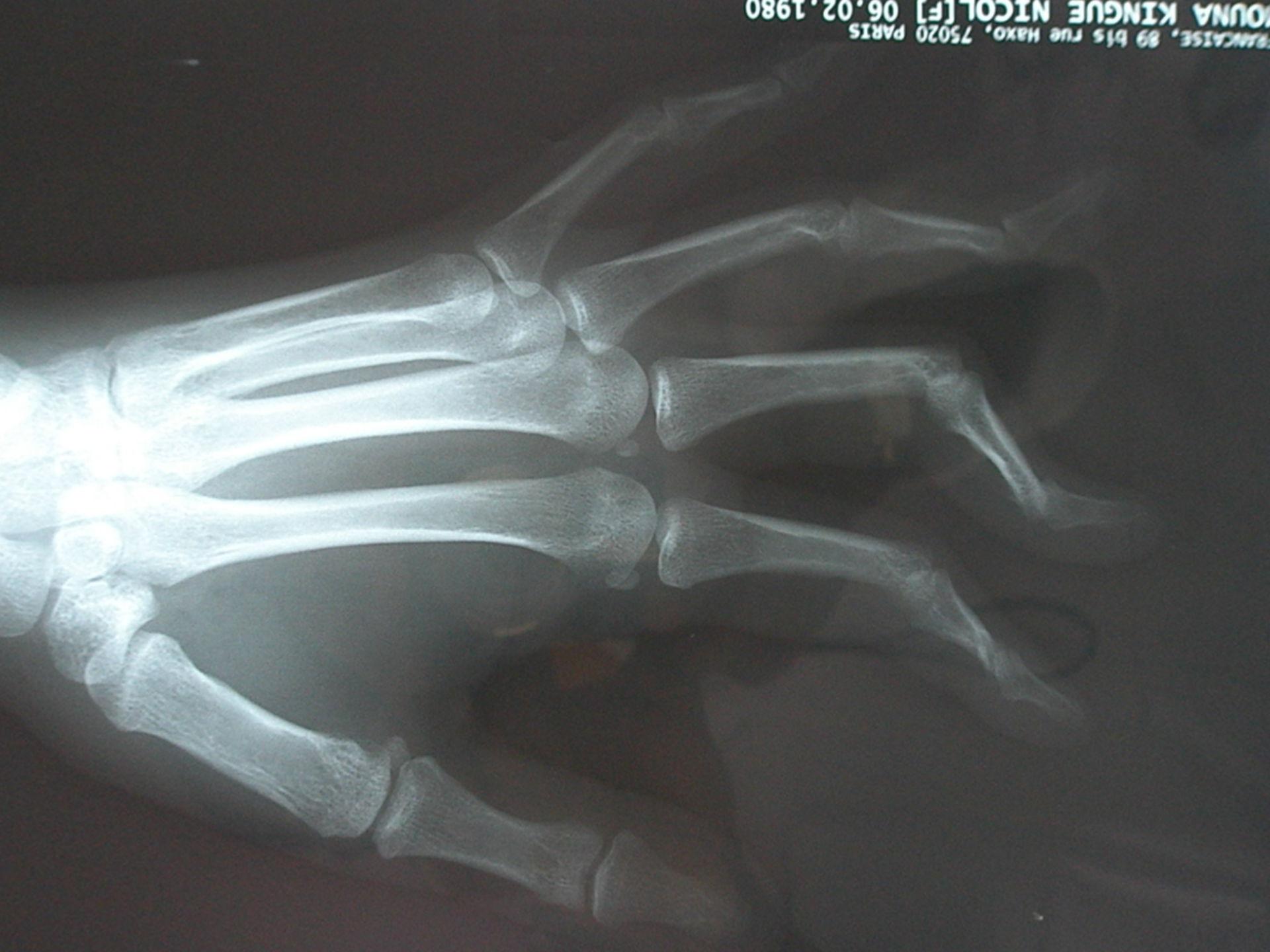 Jaccoud-Arthropathie, Röntgenaufnahme