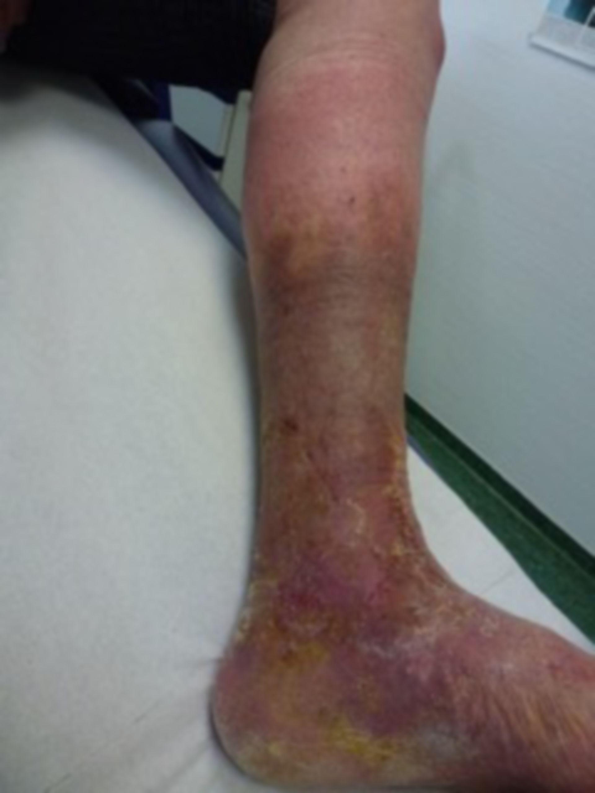 Úlcera de la pierna - Cerrada dentro de 72 horas (14)
