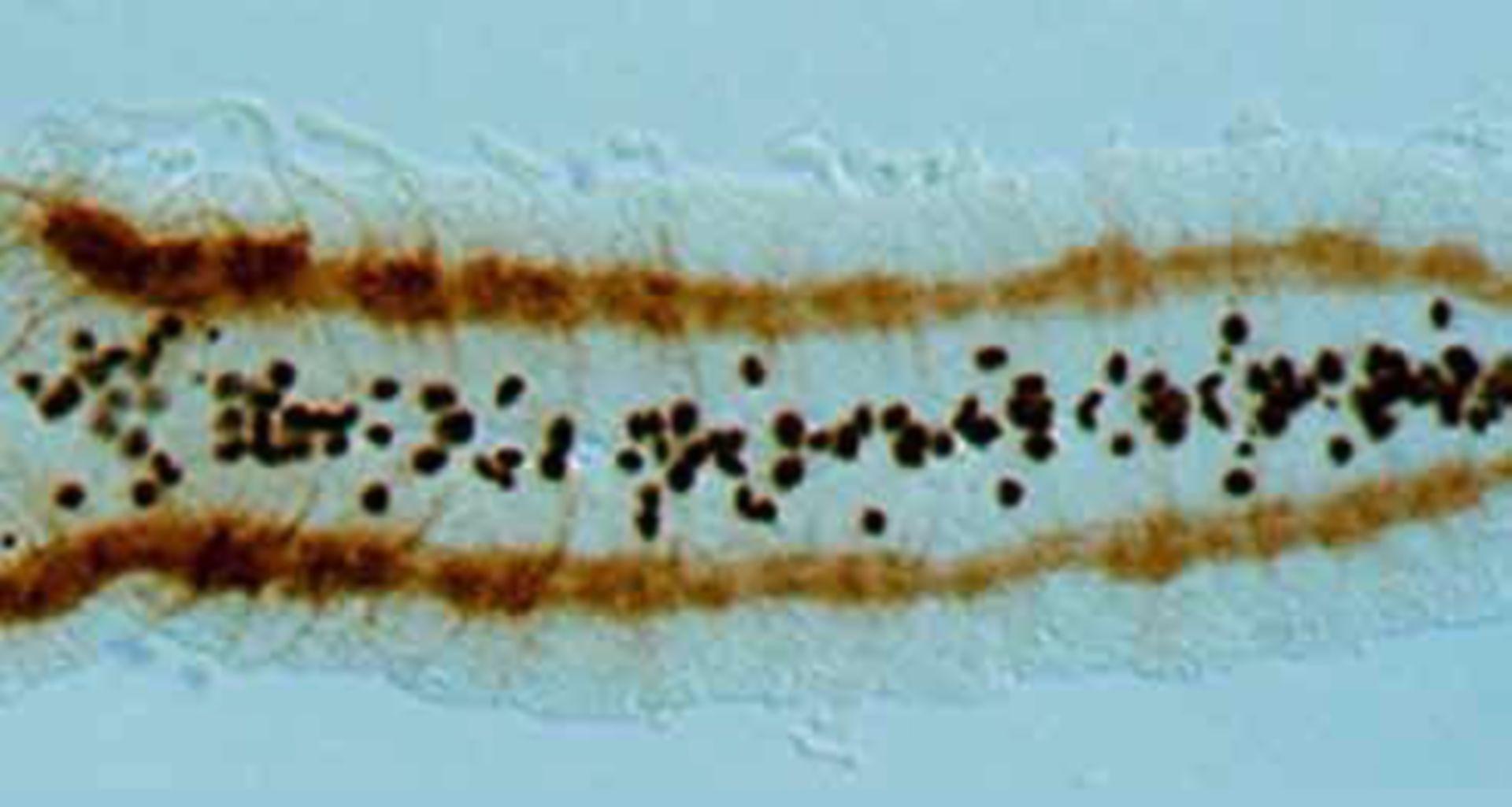Drosophila melanogaster (Glial cell) - CIL:179