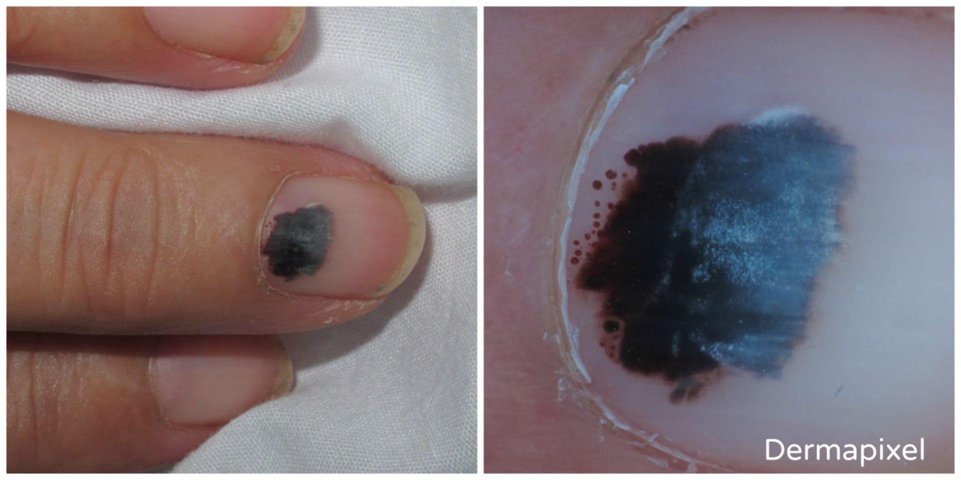 Una uña negra (3)