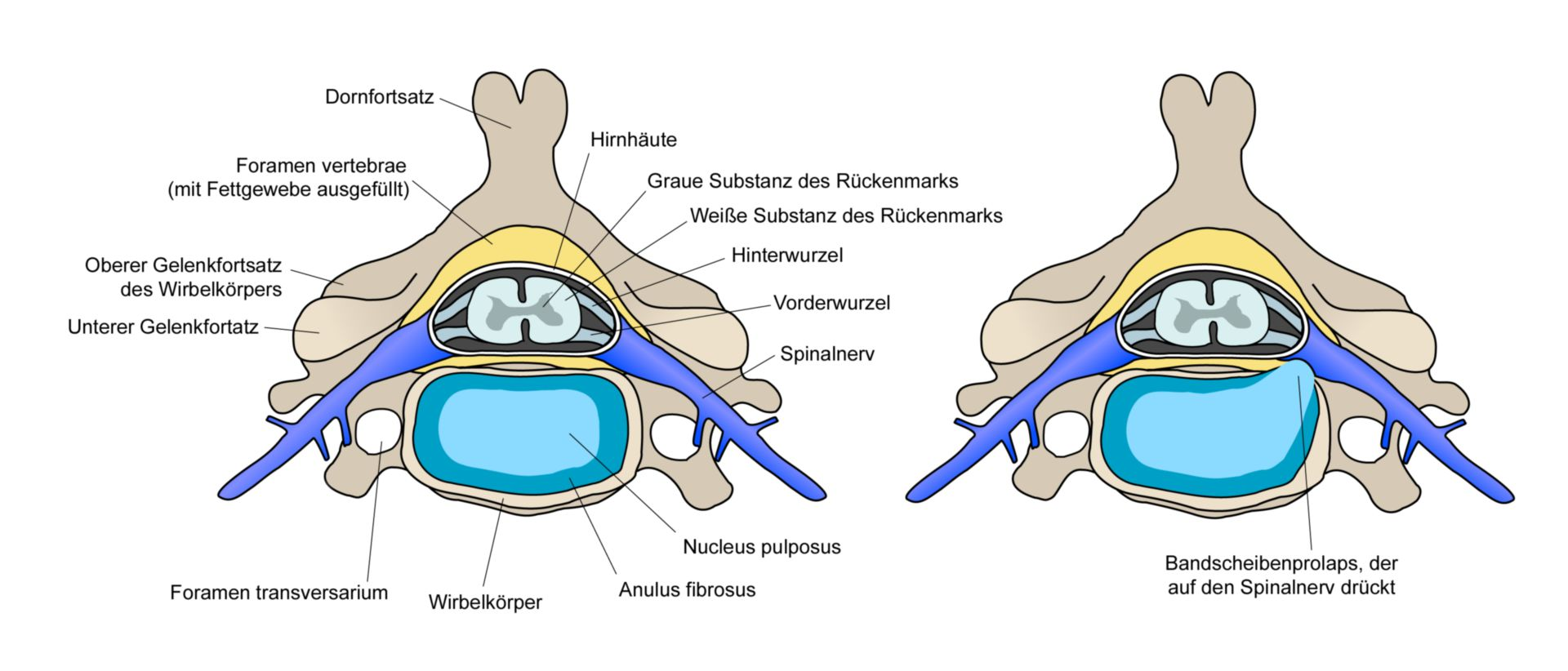 Cross section of structures of the spine (left), slipped disk (right)