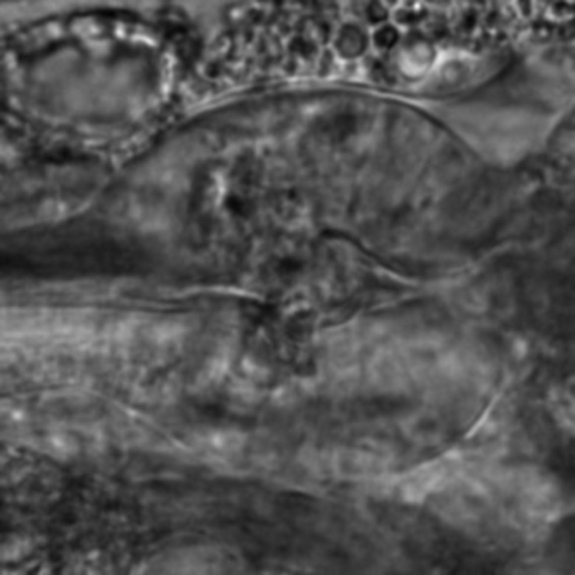 Caenorhabditis elegans - CIL:2302