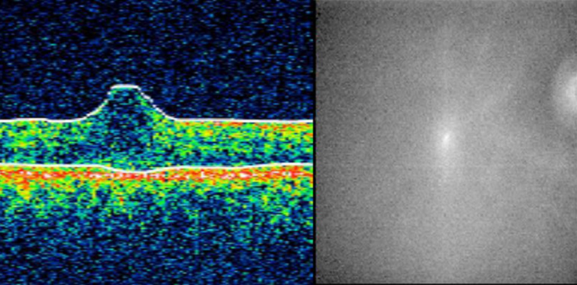 Optische Kohärenztomografie (OCT)