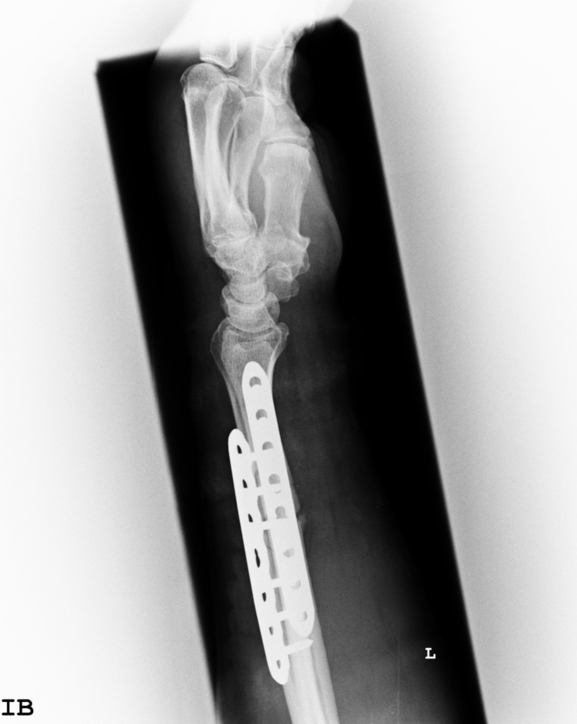 Osteosíntesis con placa
