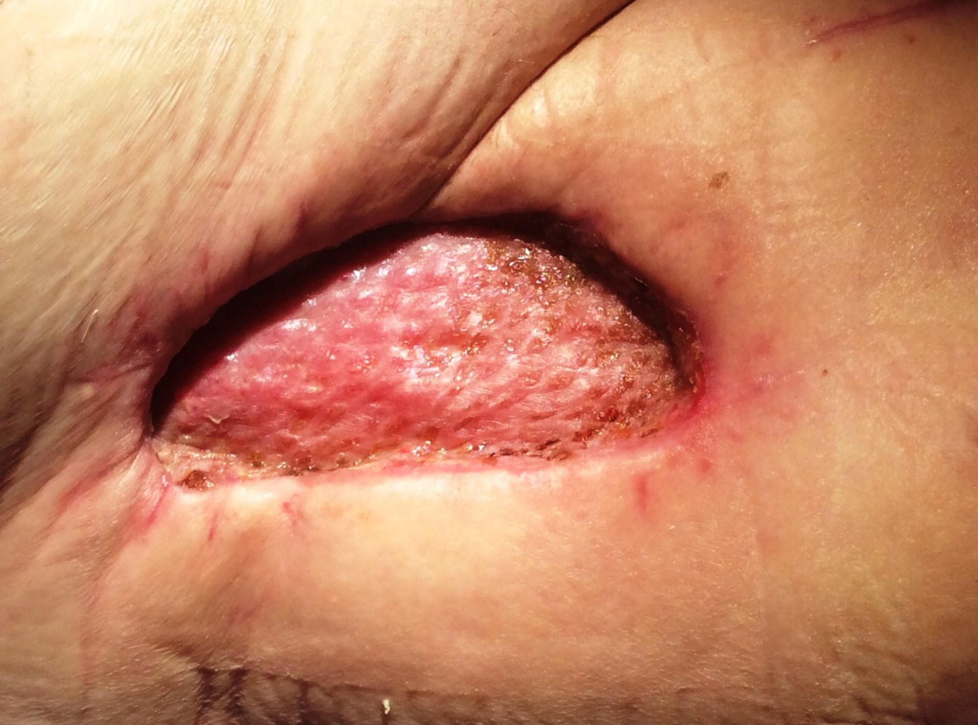 Result 8 days after skin transplant right groin after MRSA infection (Bypass surgery) and rinsing treatment with VAC Veraflow
