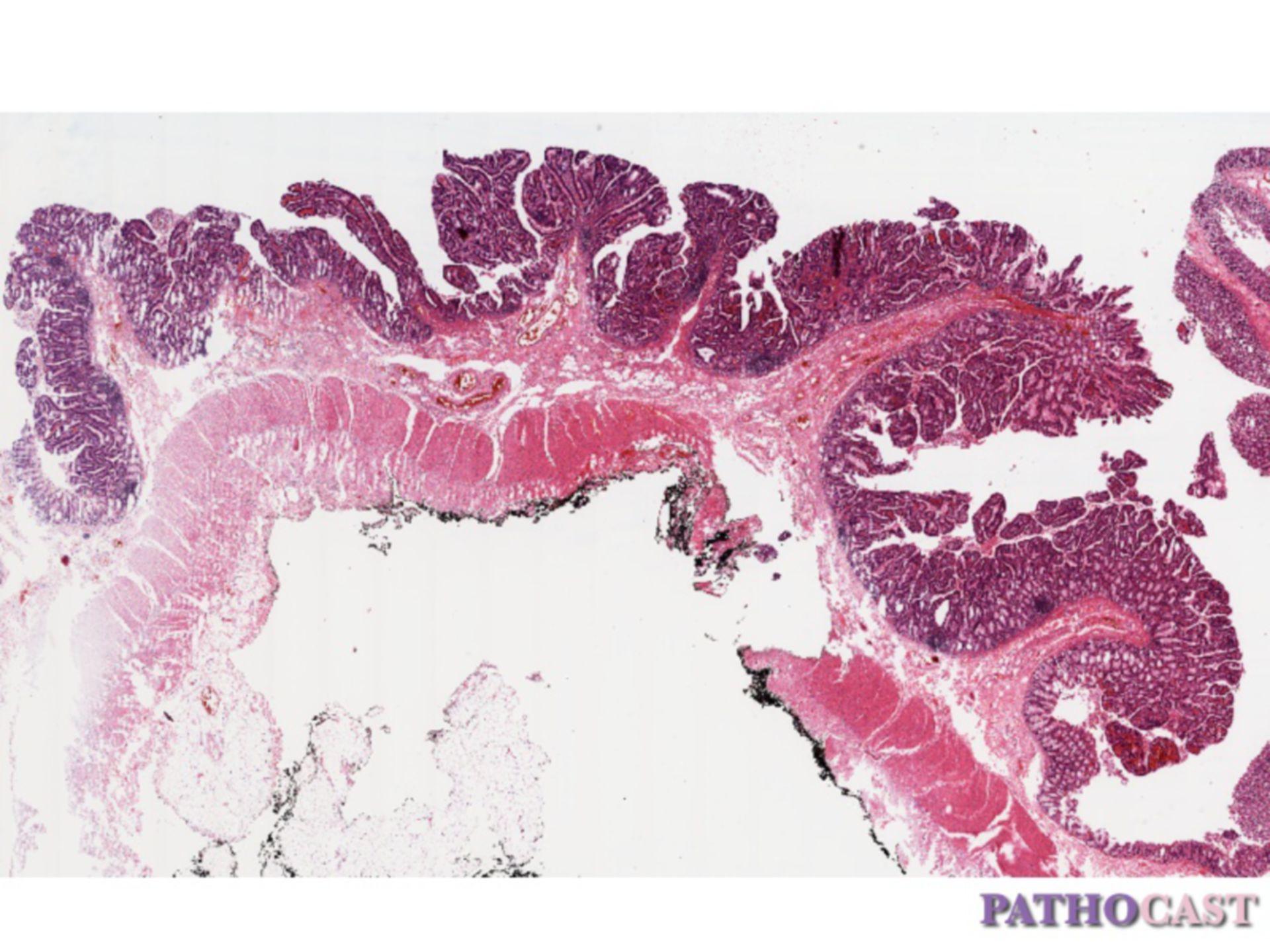 Villous adenoma of the colon