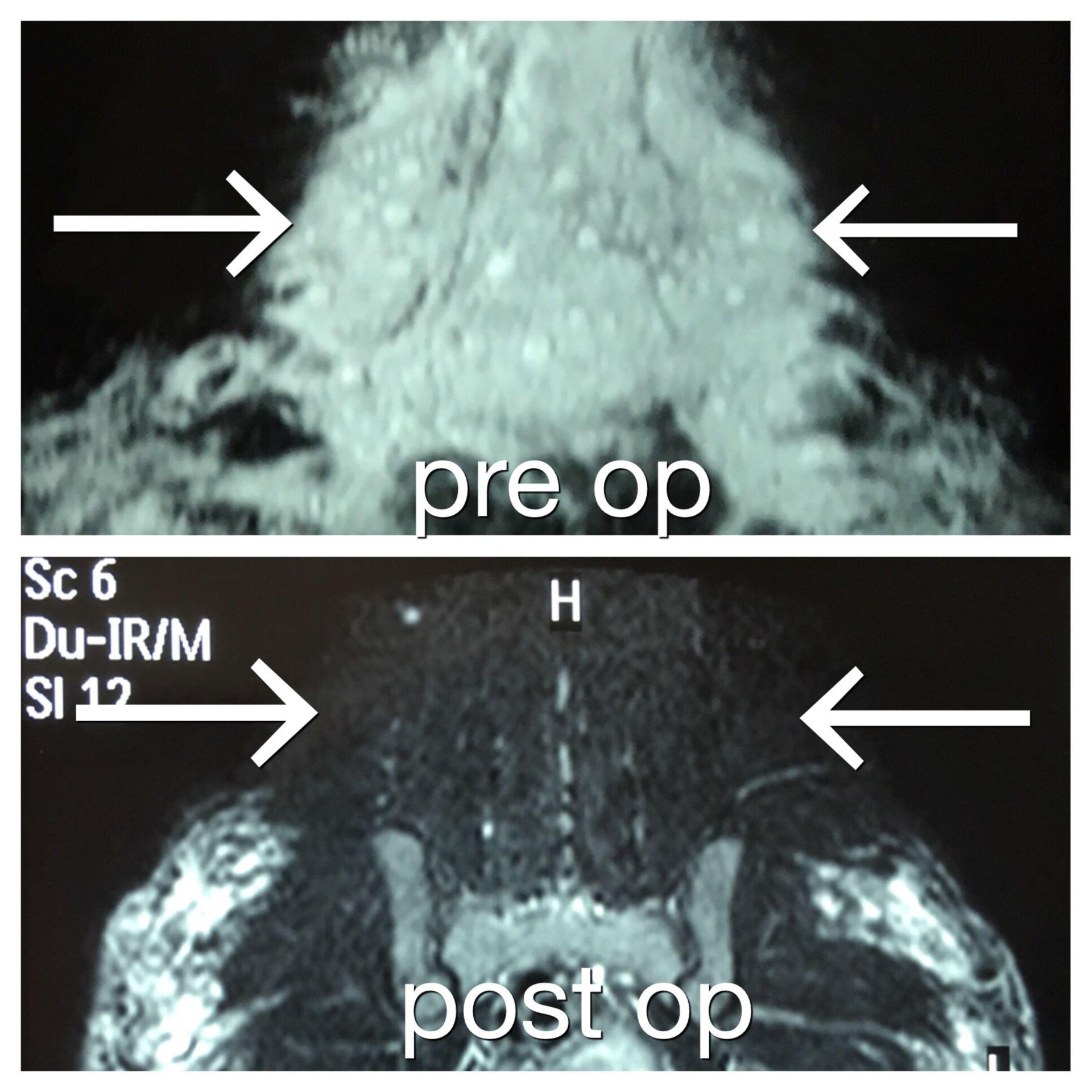 Prä- und postoperative Magnetresonanztomographie bei Biopolymer-Patienten