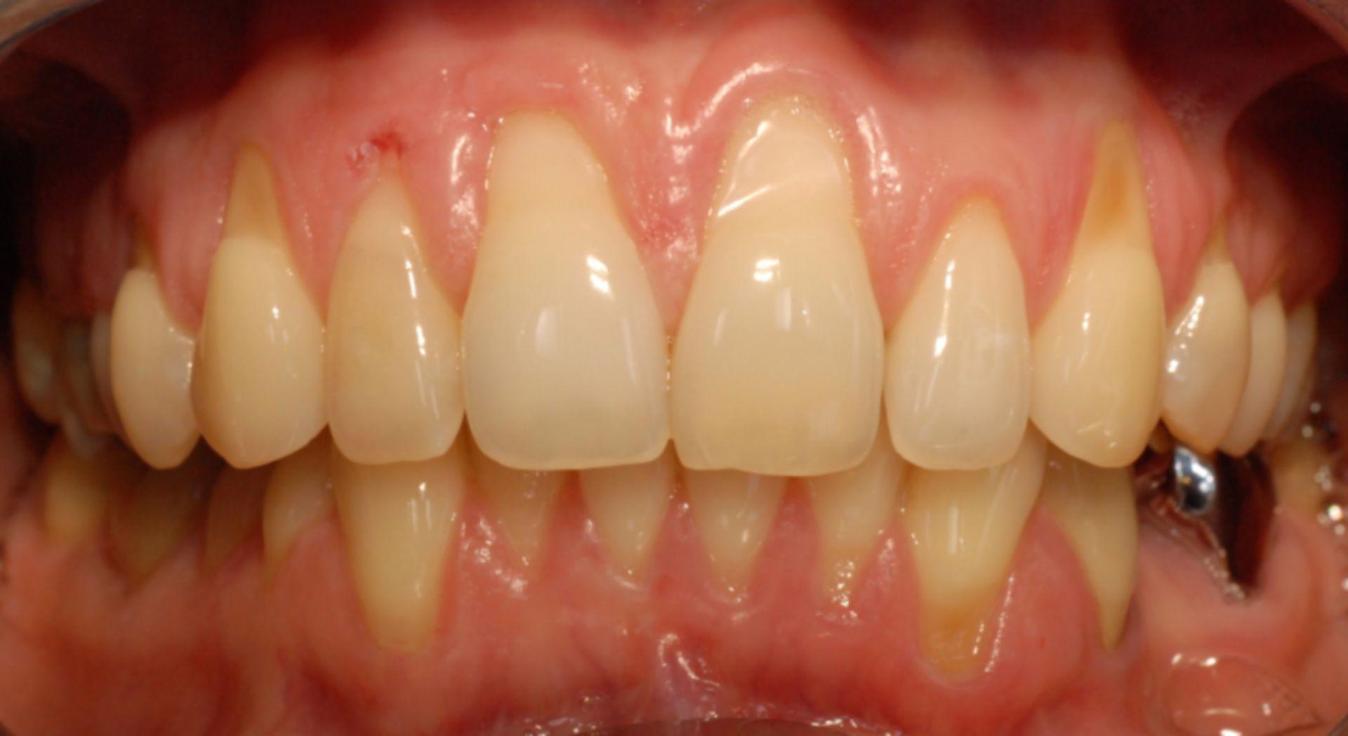 L'erosione e la recessione gengivale dei denti anteriori