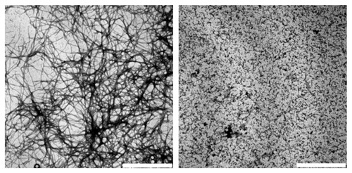 Elektronenmikroskopische Aufnahme von beta-Amyloid in Anwesenheit von alphaB-Crystallin (rechts) und ohne (links). © Andi Mainz / TUM