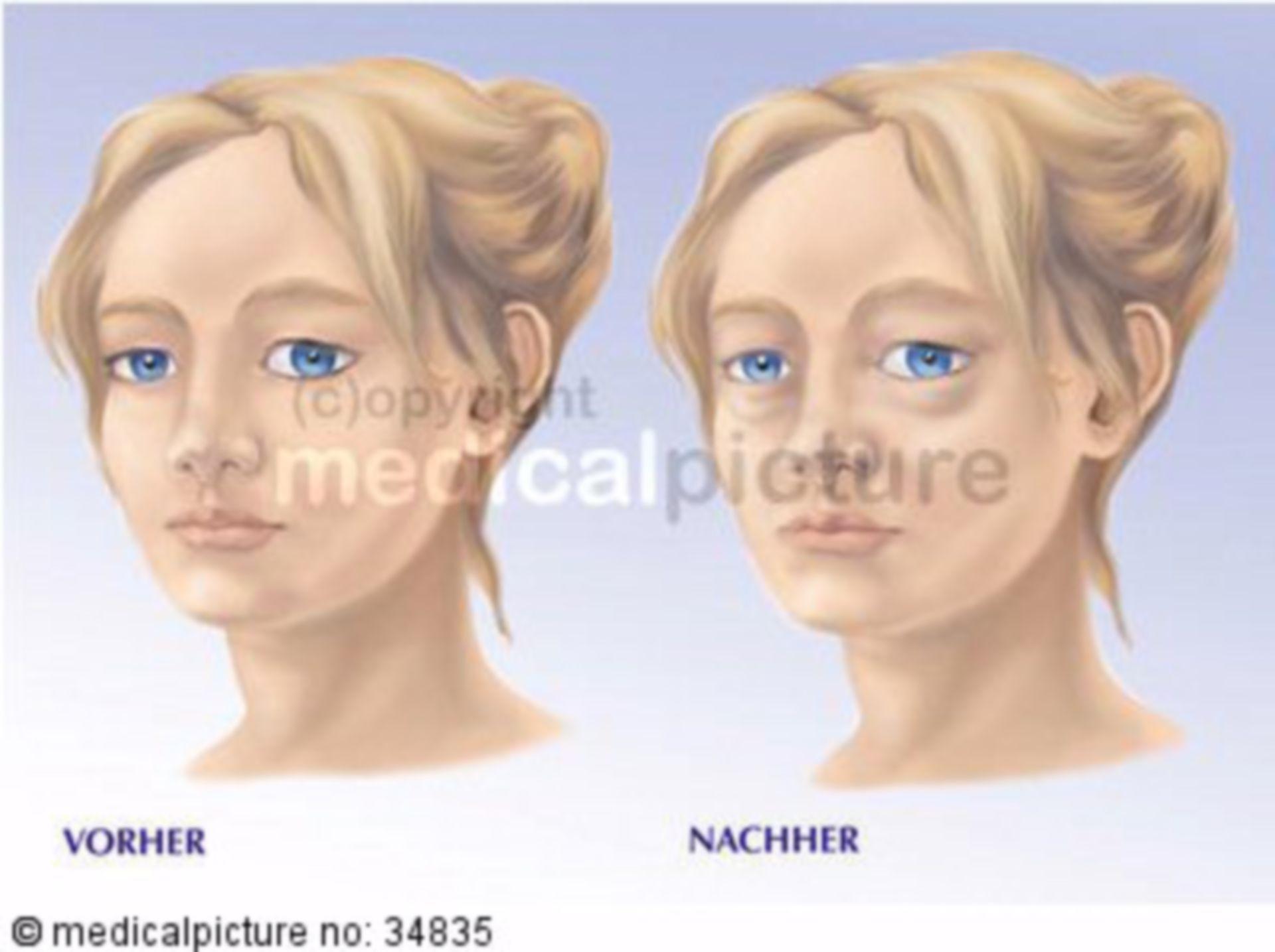 Facial Edema