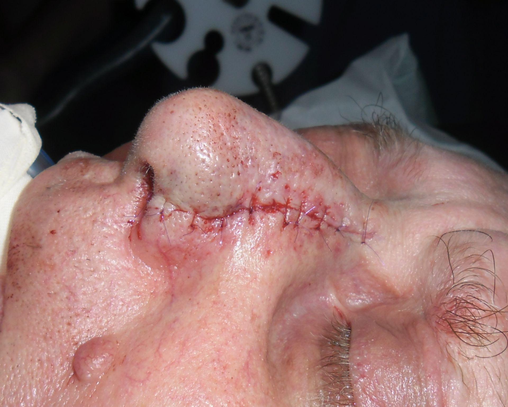 Plattenepihelkarzinom der Nase- postop.Ergebnis
