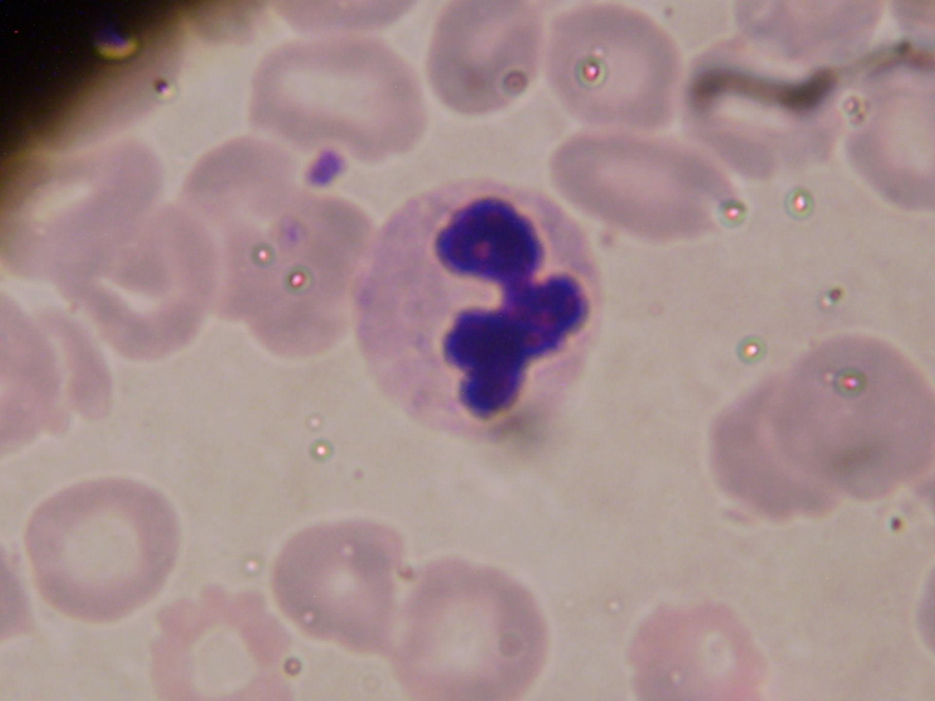 plasmodium bandformi