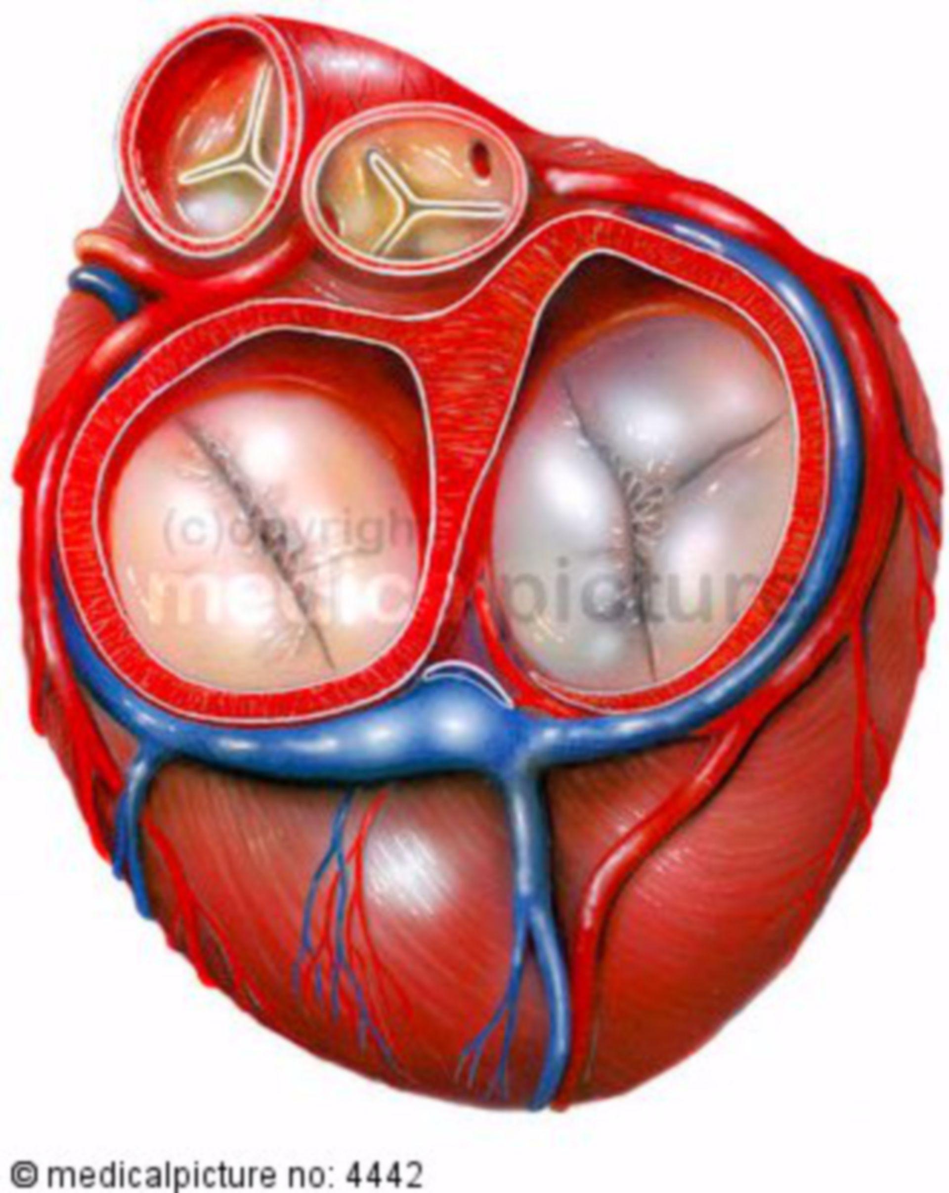 Valvola cardiaca