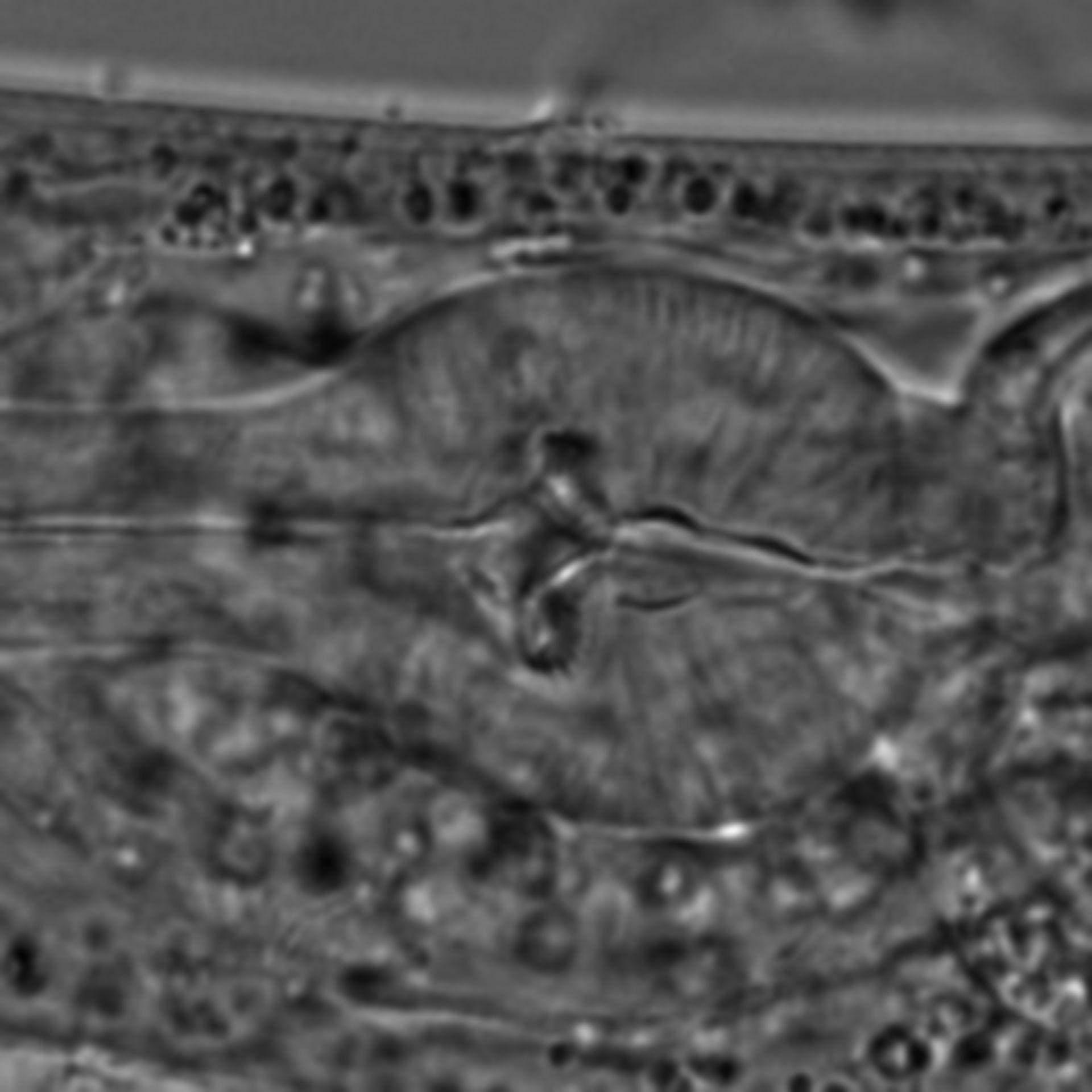 Caenorhabditis elegans - CIL:1663