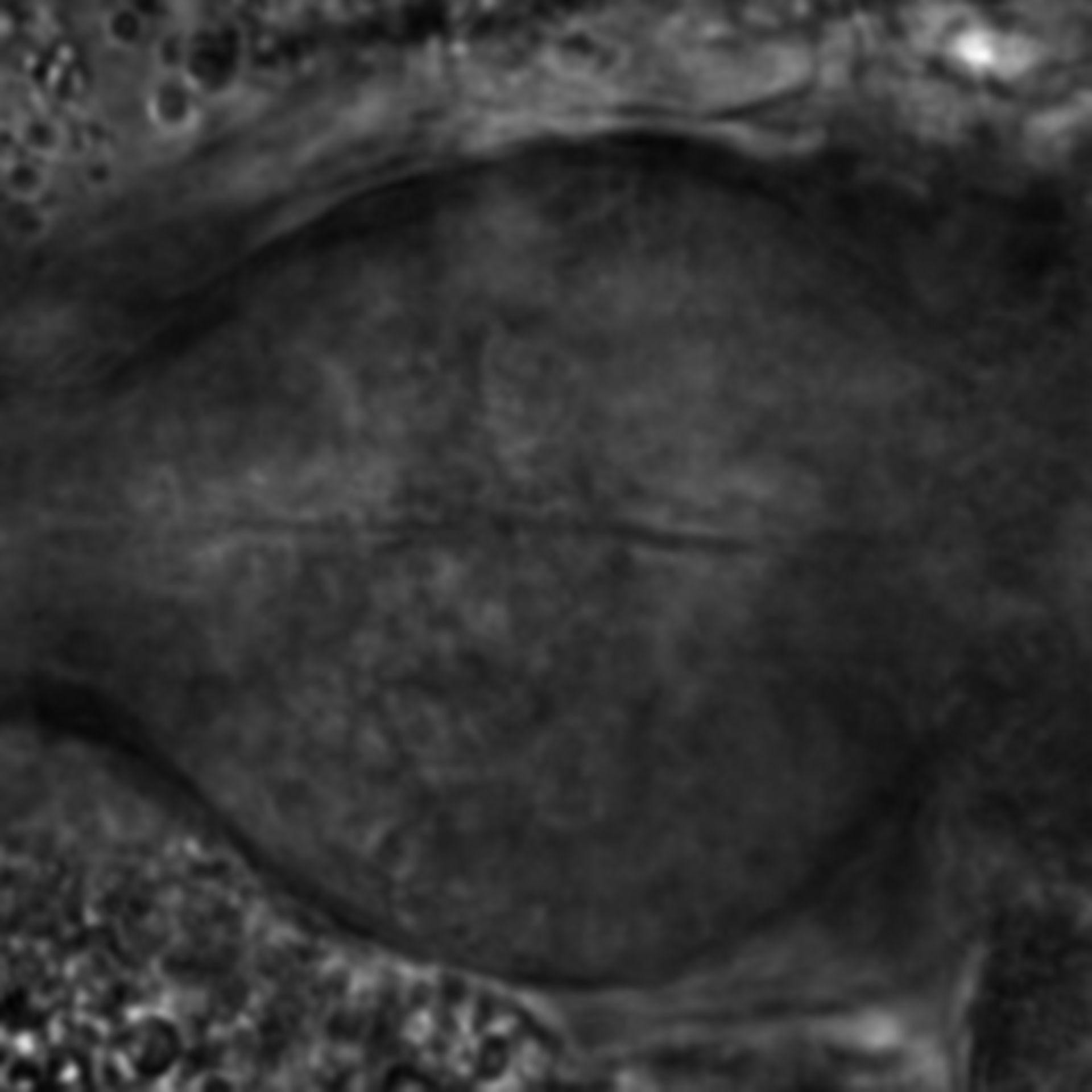 Caenorhabditis elegans - CIL:1907
