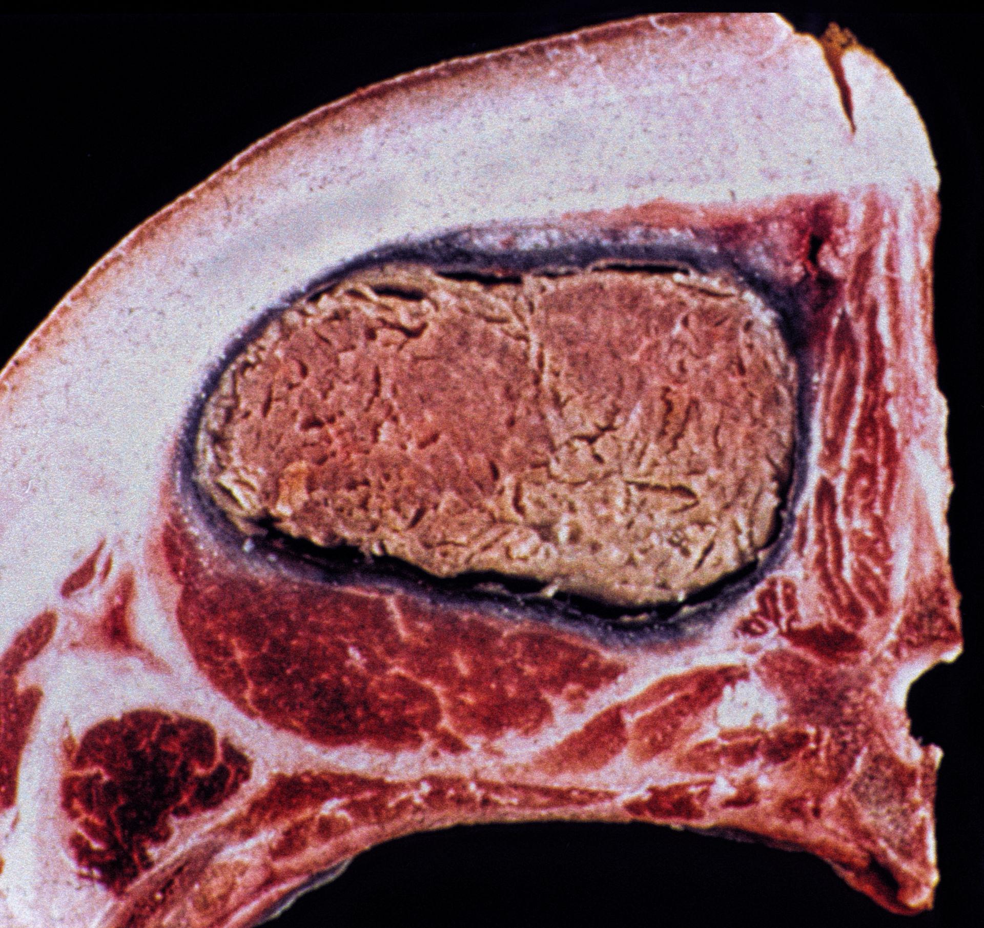 Necrosi del muscolo dorsale