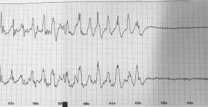 anbei ein Beispiel für das EEG eines mittels EKT induzierten zerebralen Anfalls.