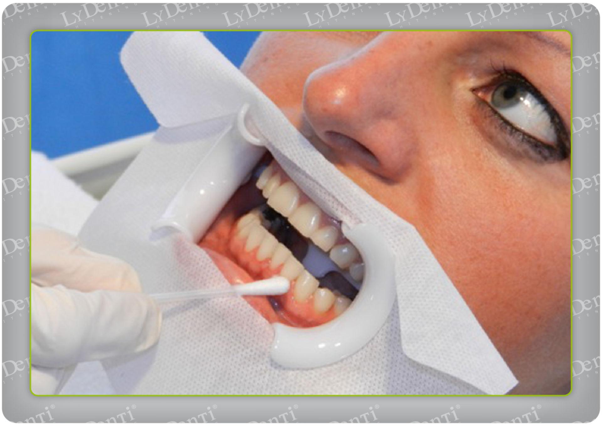 Blanqueamiento dental (11)