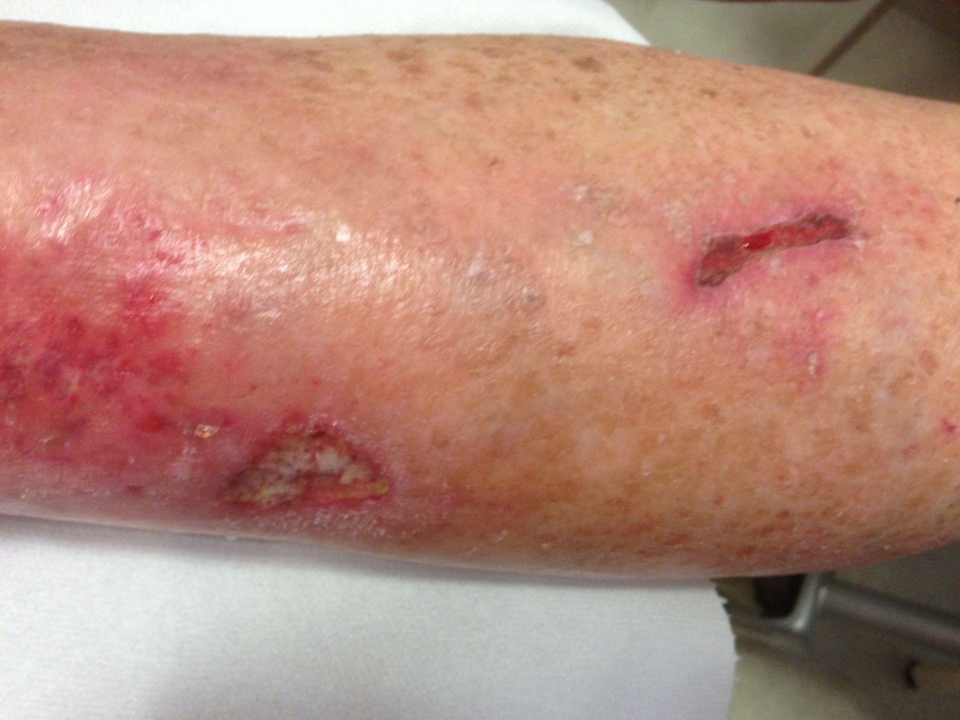 Úlcera venosa en IVC