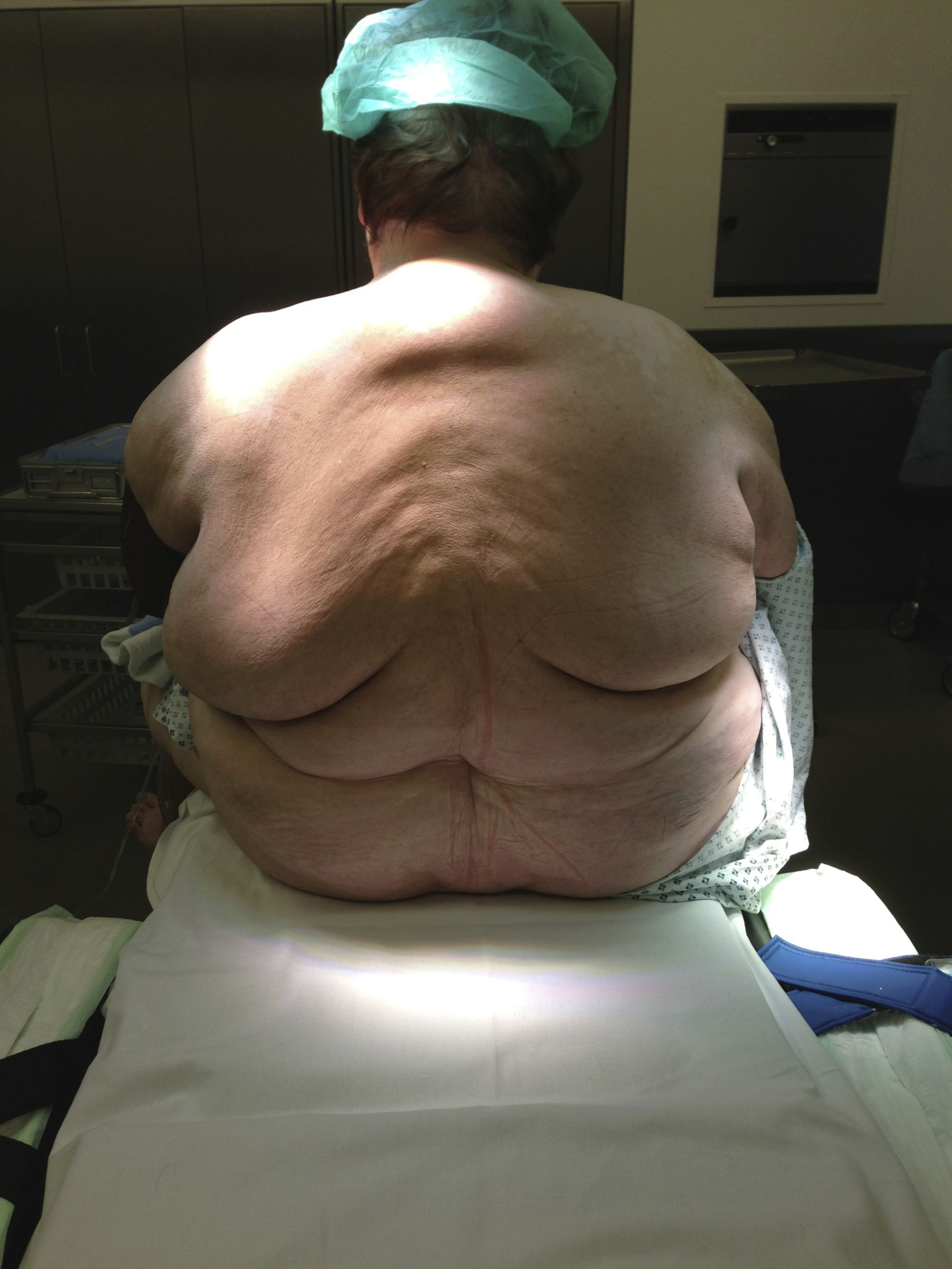 Paciente con obesidad mórbida