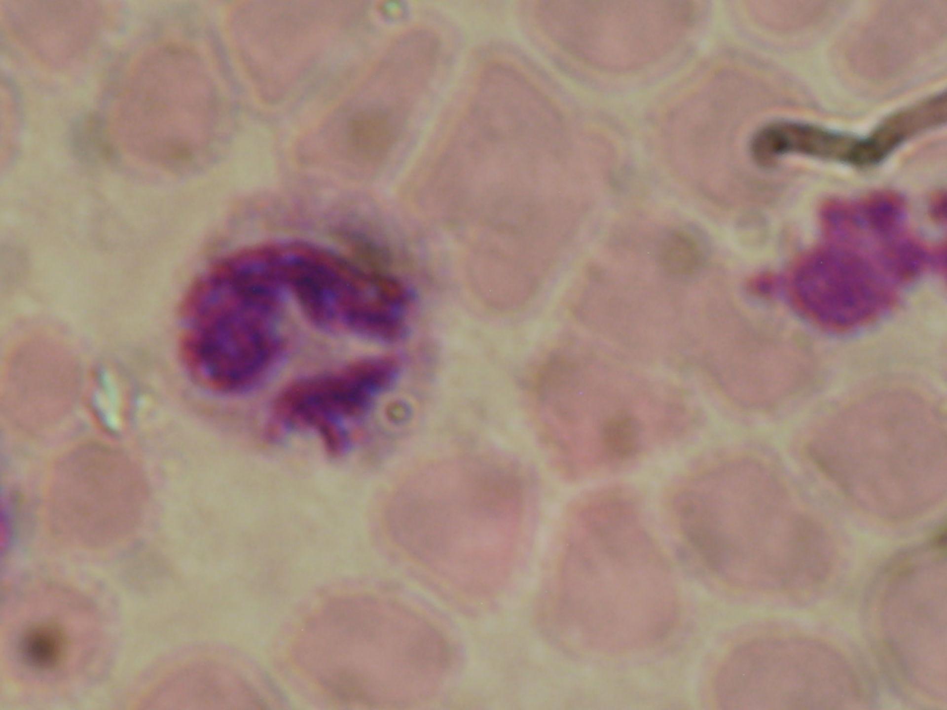 plasmodium ovale schizontg