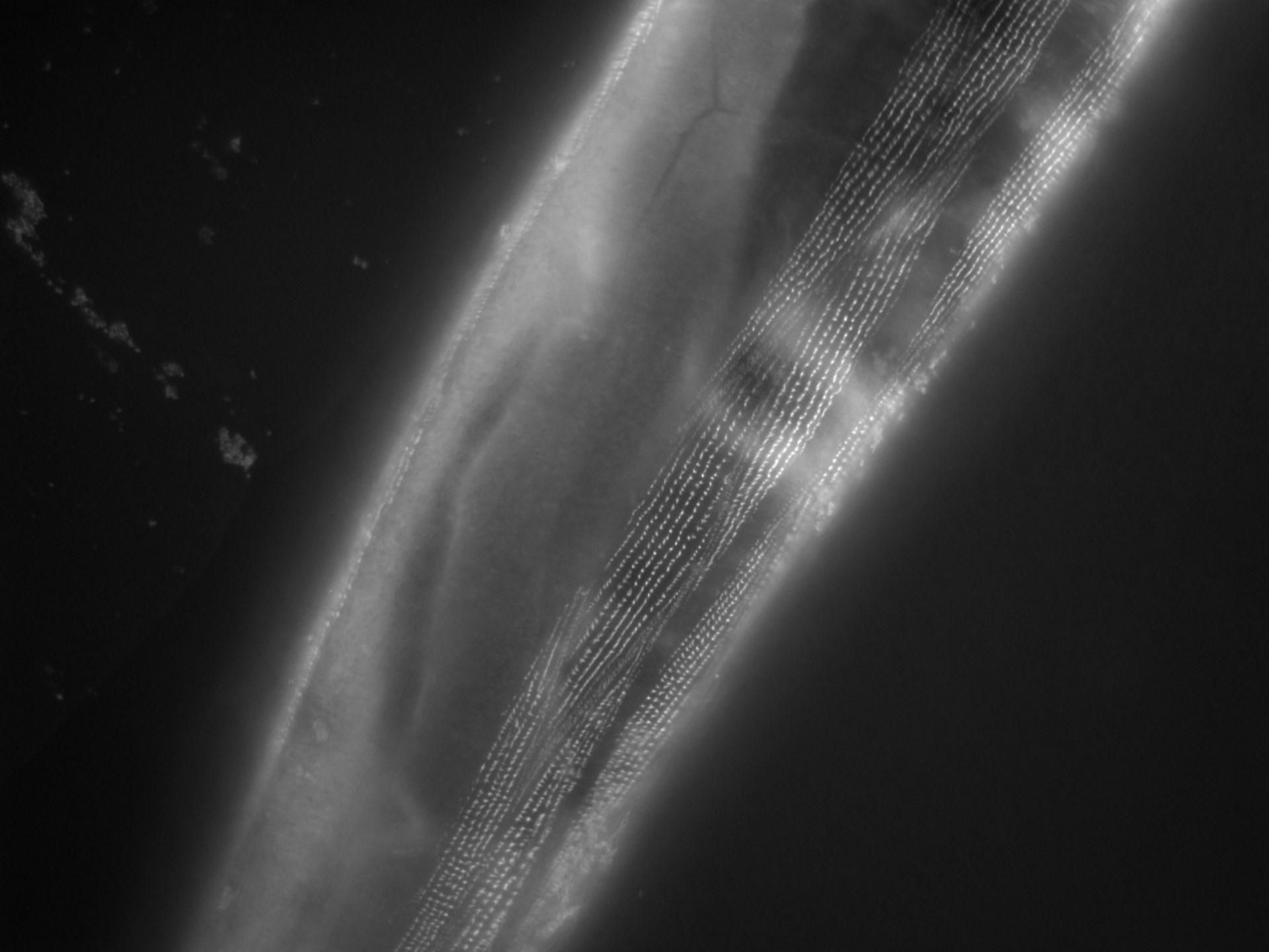 Caenorhabditis elegans (filamento di actina) - CIL:1172