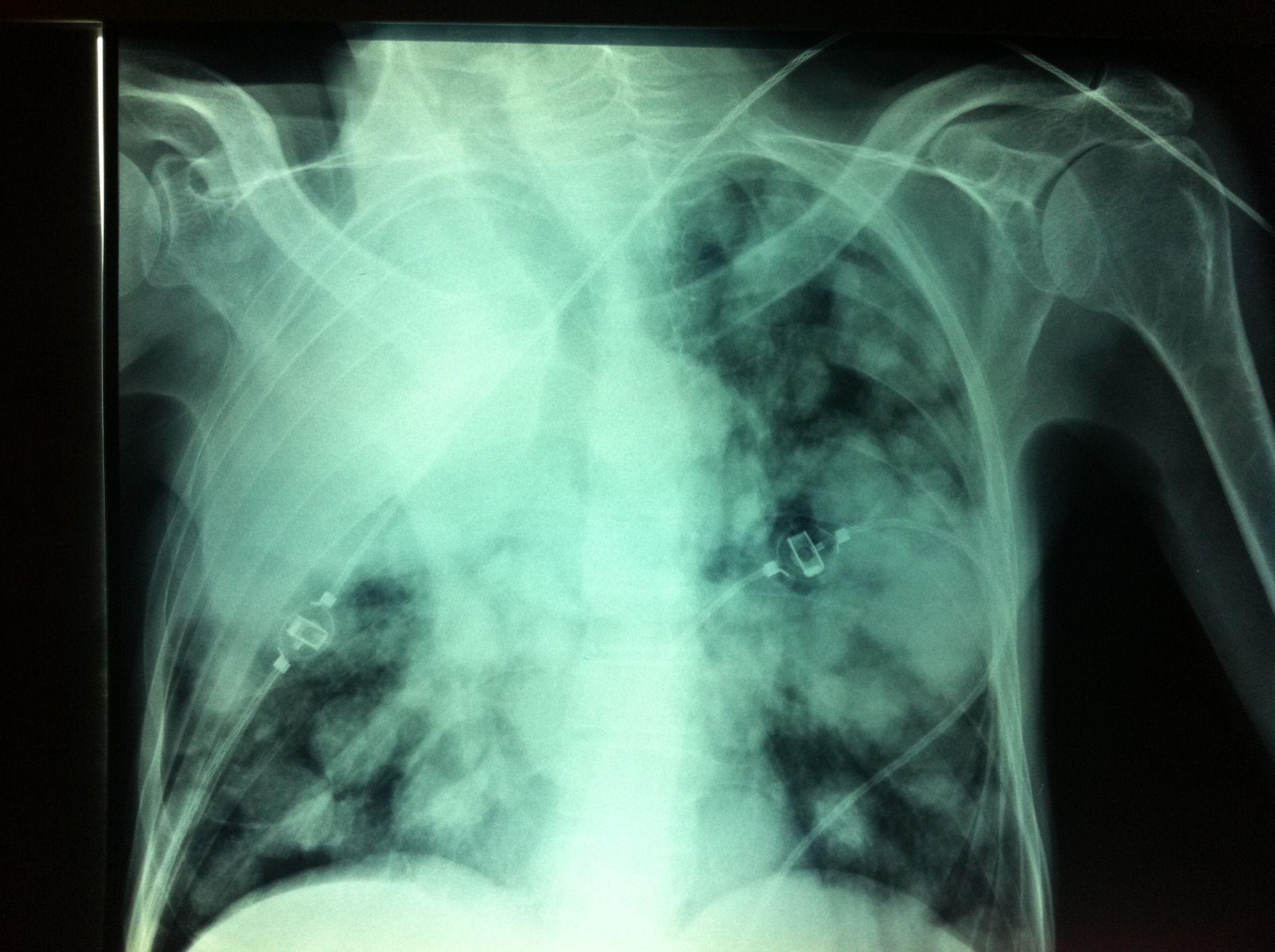 Polmone metastasi, lobo superiore completamente bloccato