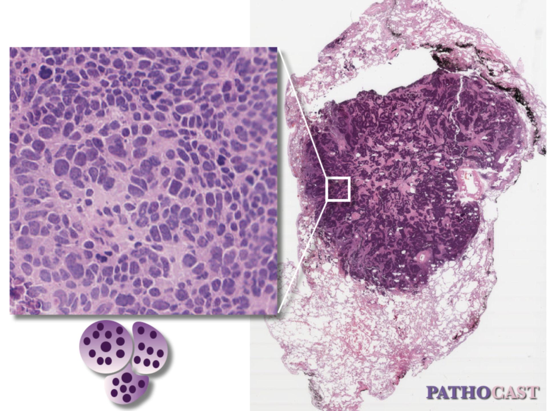 Kleinzelliges Karzinom, Histologie
