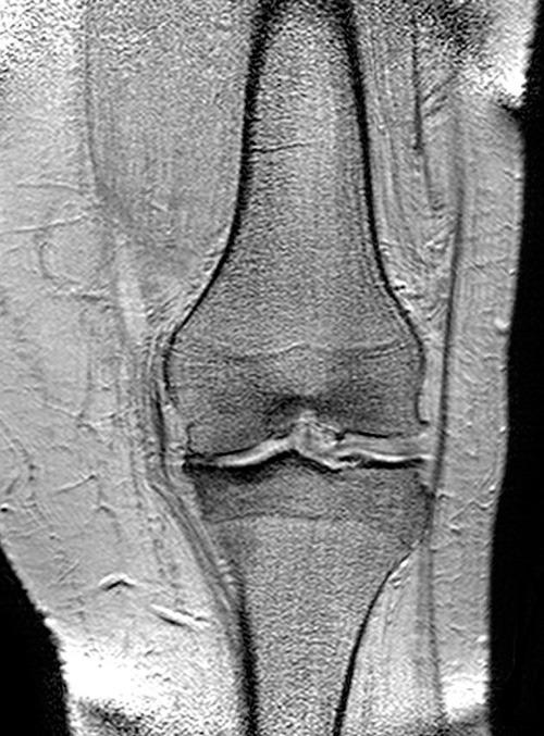 Magnetresonanztomographie eines arthrotischen Kniegelenkes. Zu sehen ist der Verschleiss der Knorpelschicht im linken Bereich des Bildes. © Wikimedia Commons