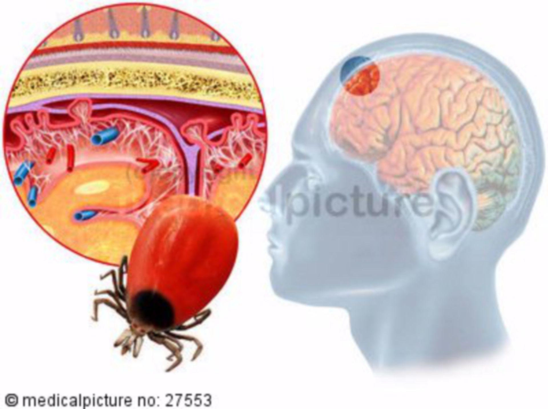 Early summer meningoencephalitis (ESME)