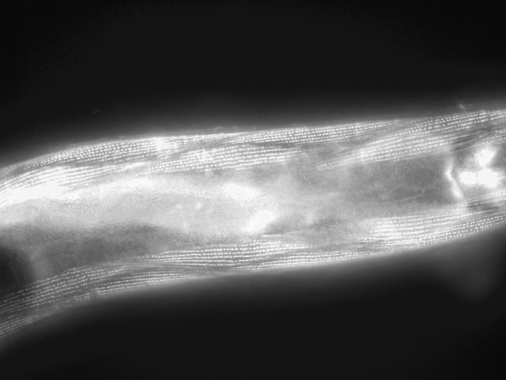 Caenorhabditis elegans (Actin filament) - CIL:1158