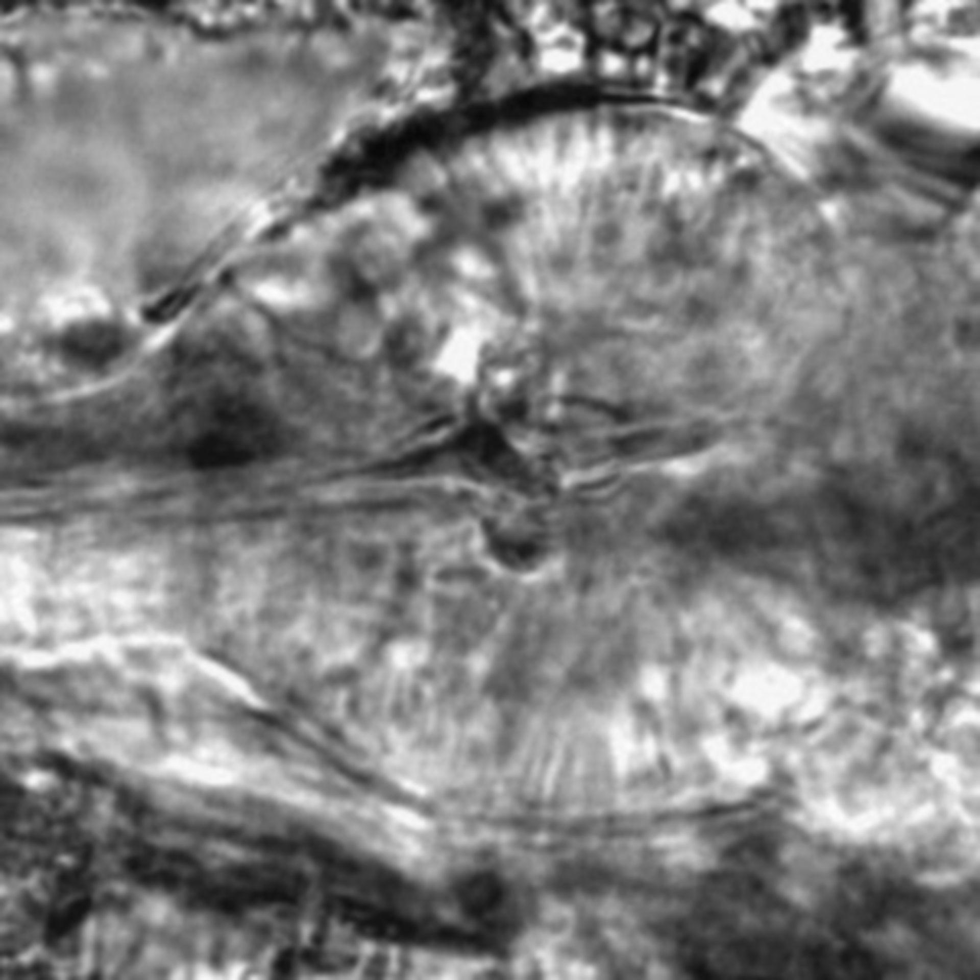 Caenorhabditis elegans - CIL:2155